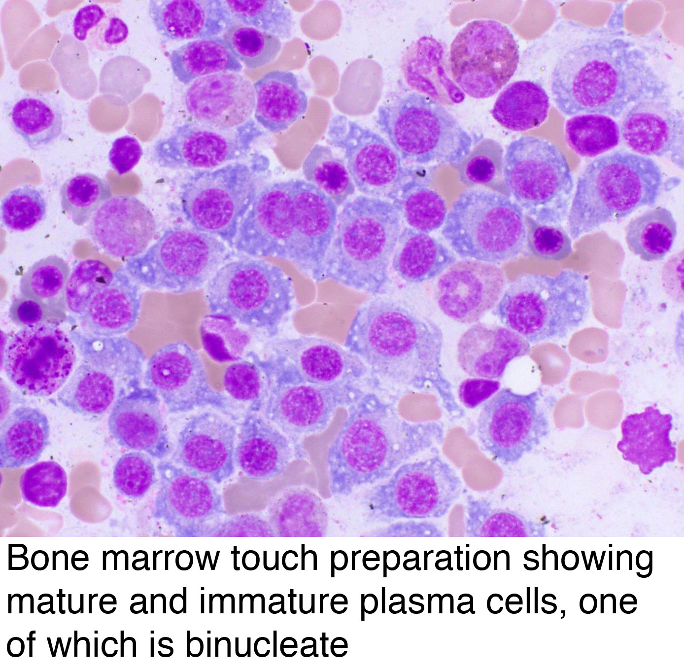Pathology Outlines - Plasma cell myeloma (multiple myeloma)