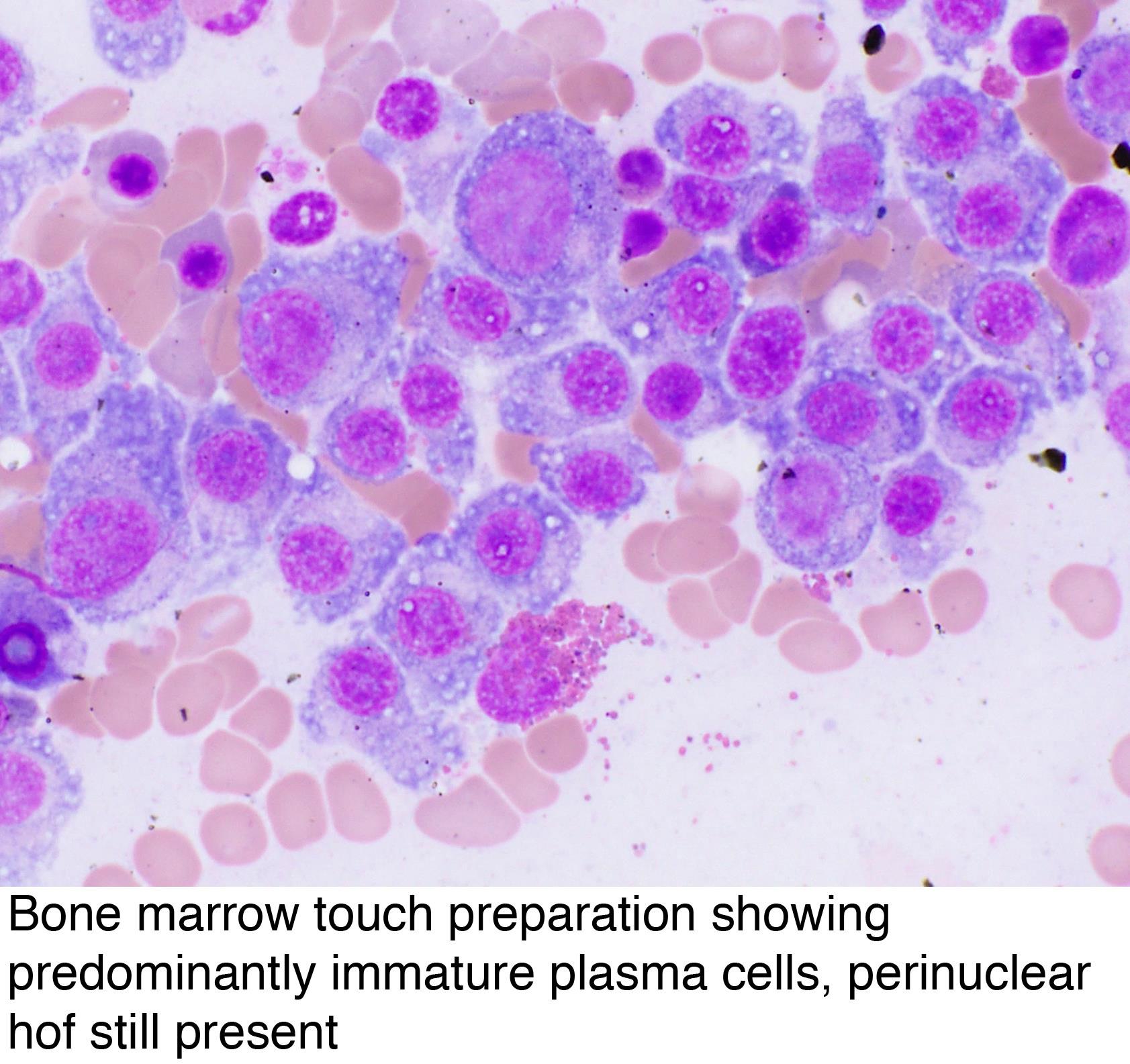 Pathology Outlines - Plasma cell myeloma (multiple myeloma)