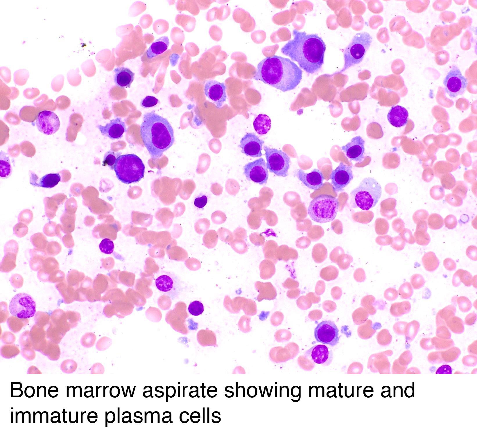 Bone marrow matures