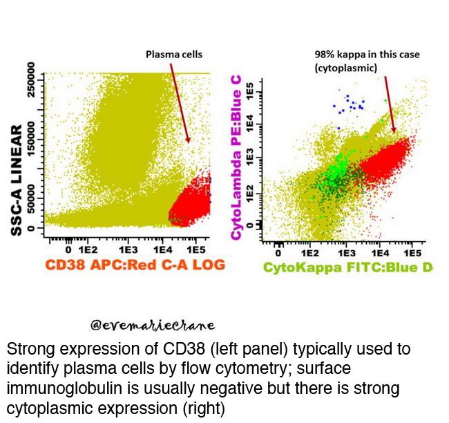Pathology outlines plasma cell myeloma multiple myeloma strong cytoplasmic expression neoplastic plasma cells publicscrutiny Gallery