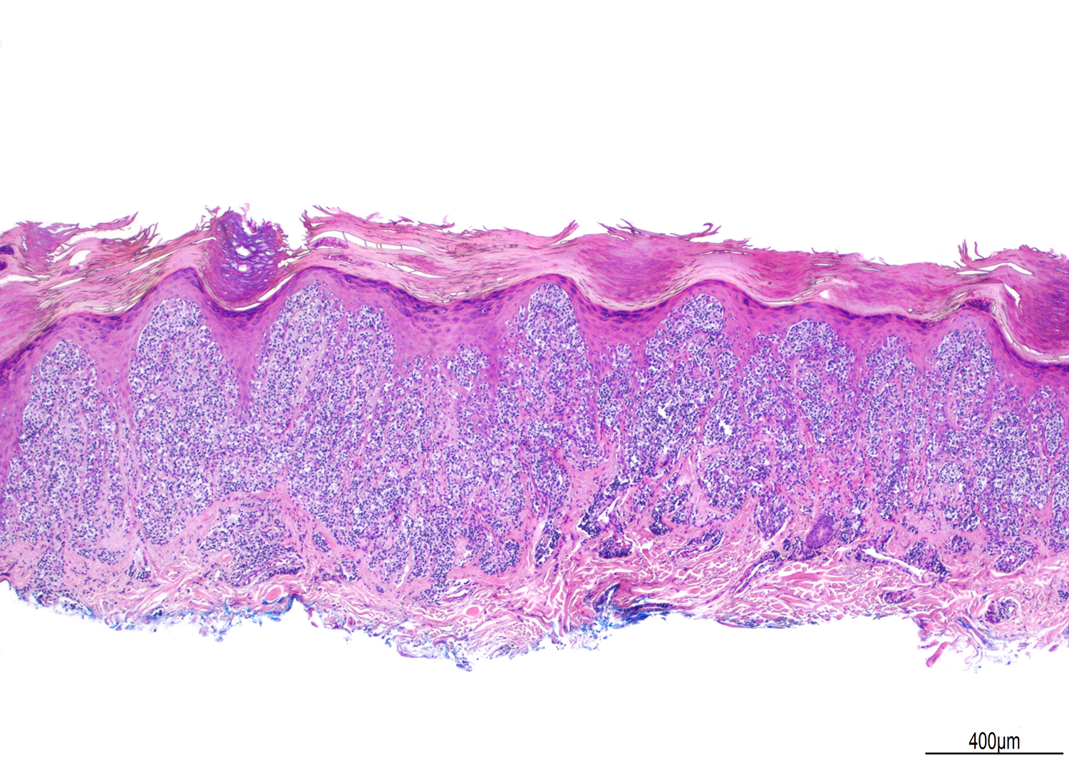 Pagetoid reticulosis