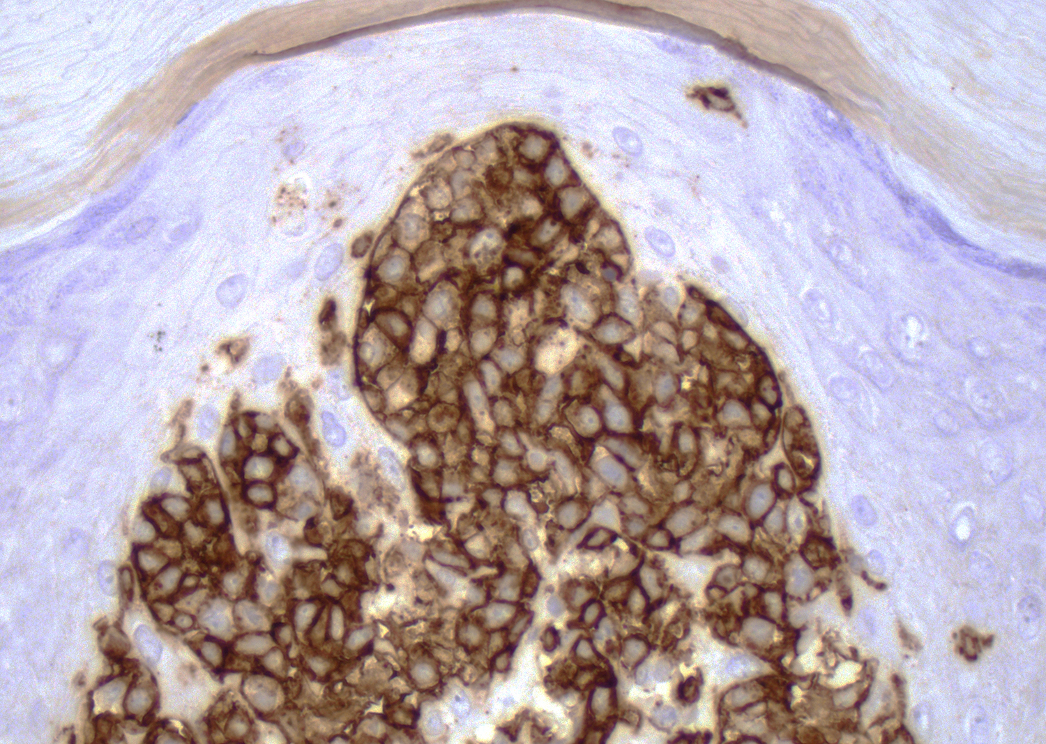 CD8 in pagetoid reticulosis