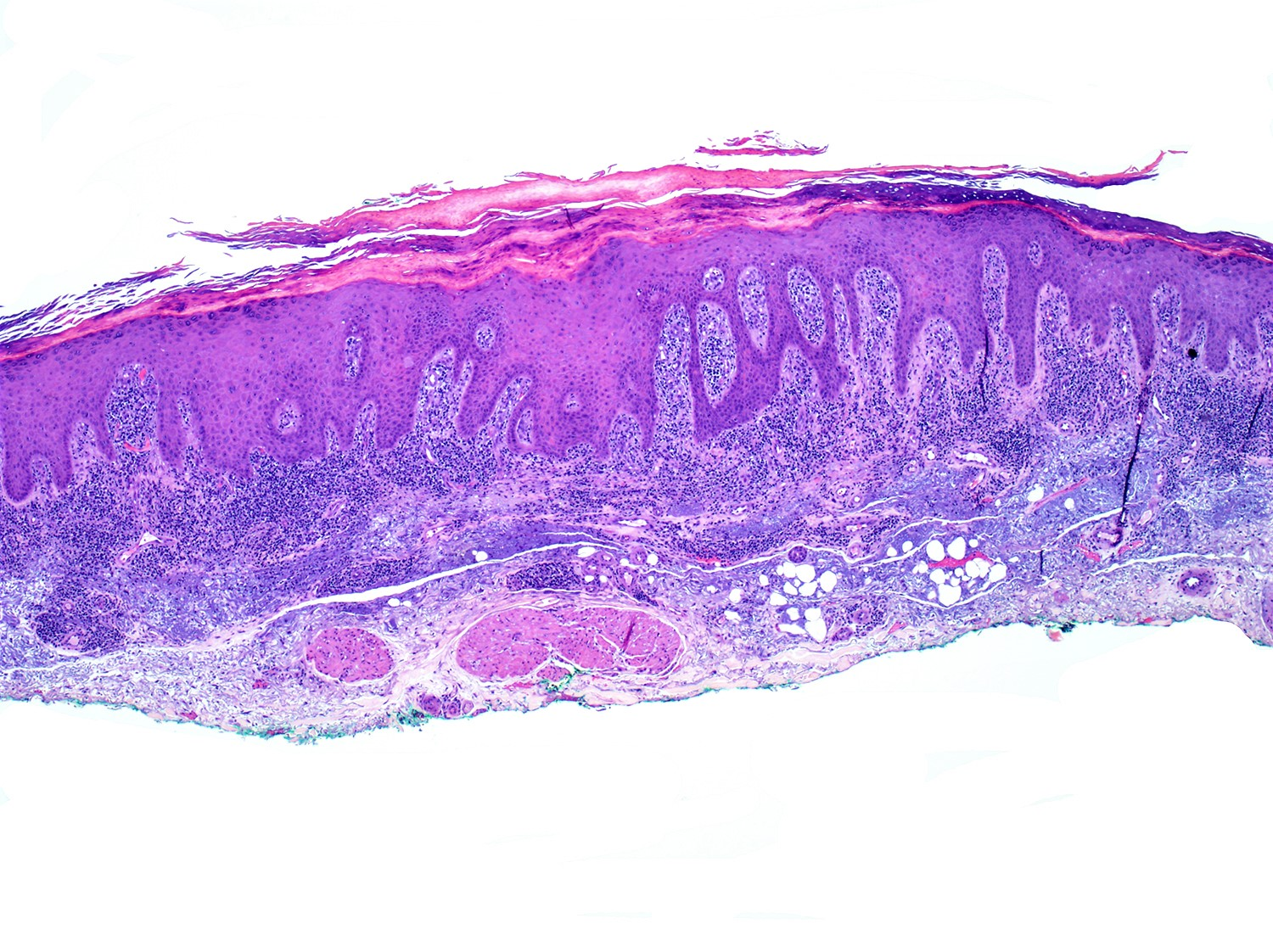 Epidermotropic and lichenoid lymphoid infiltrate