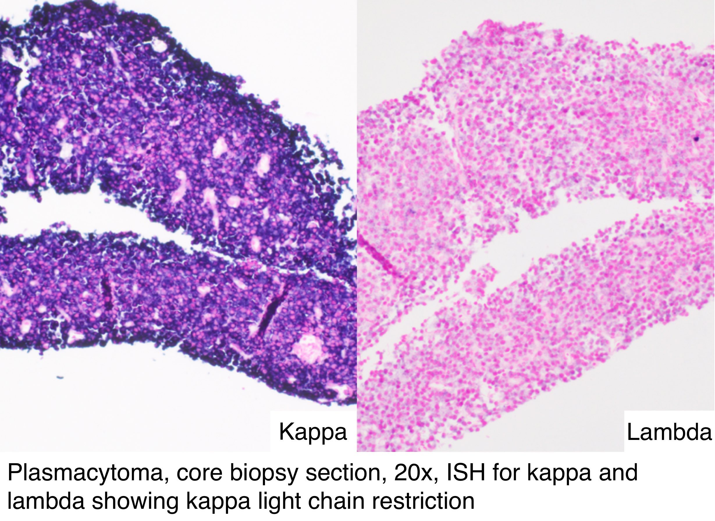 kappa lambda blut myelom