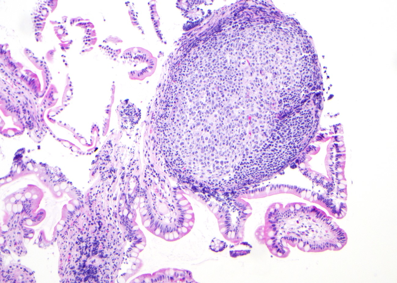 Lymphoid follicles