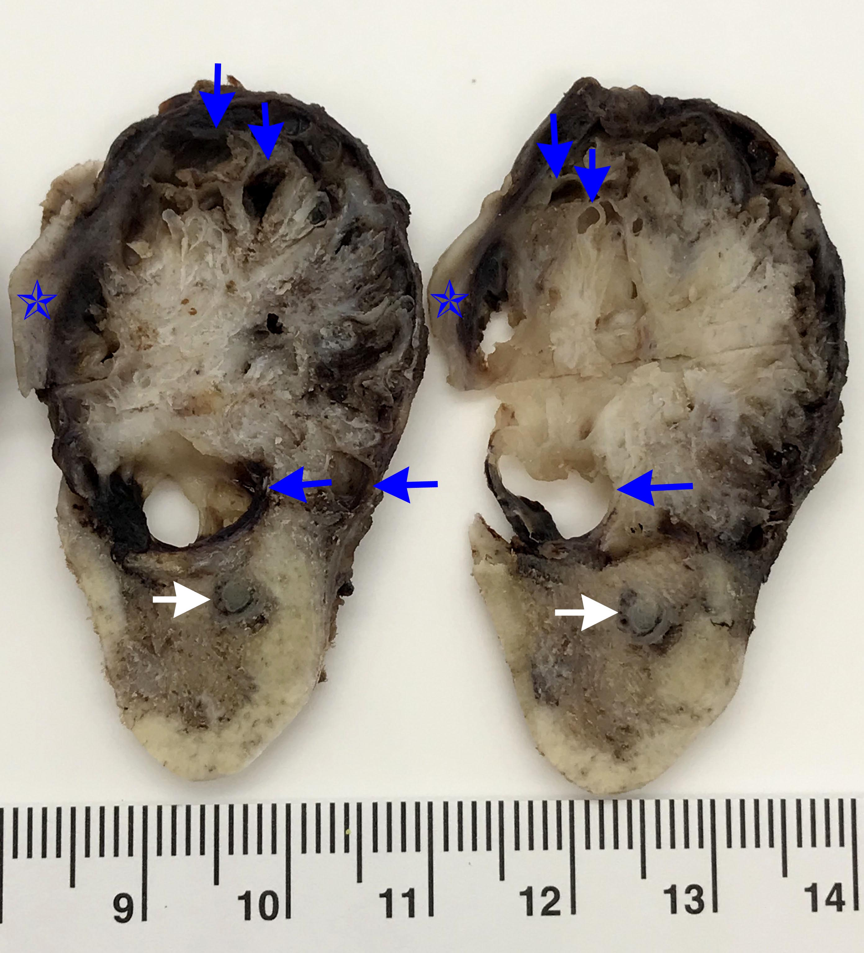 Cross sections of mandible tumor