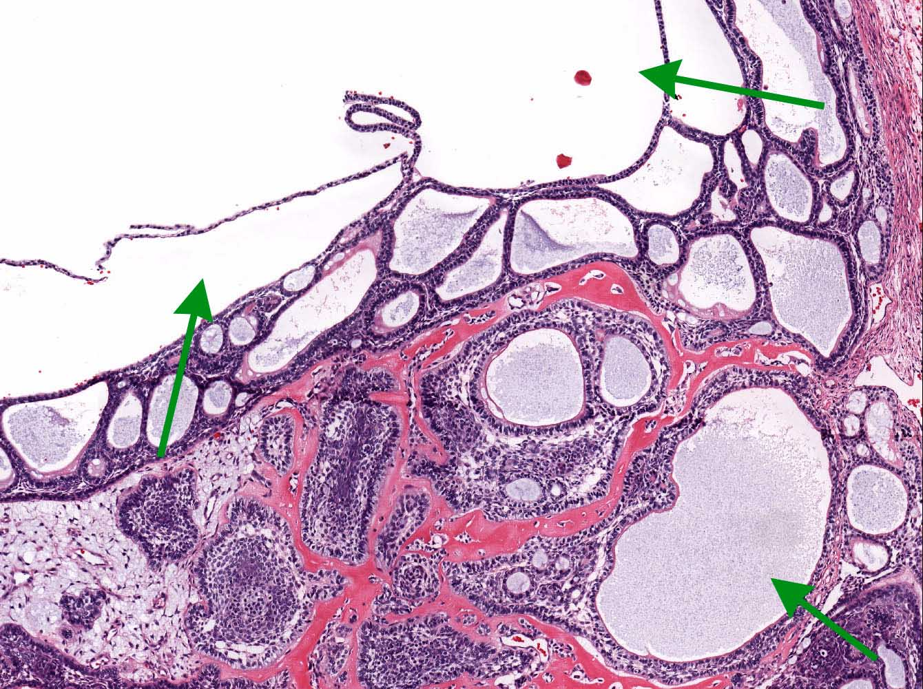 Microcyst formation