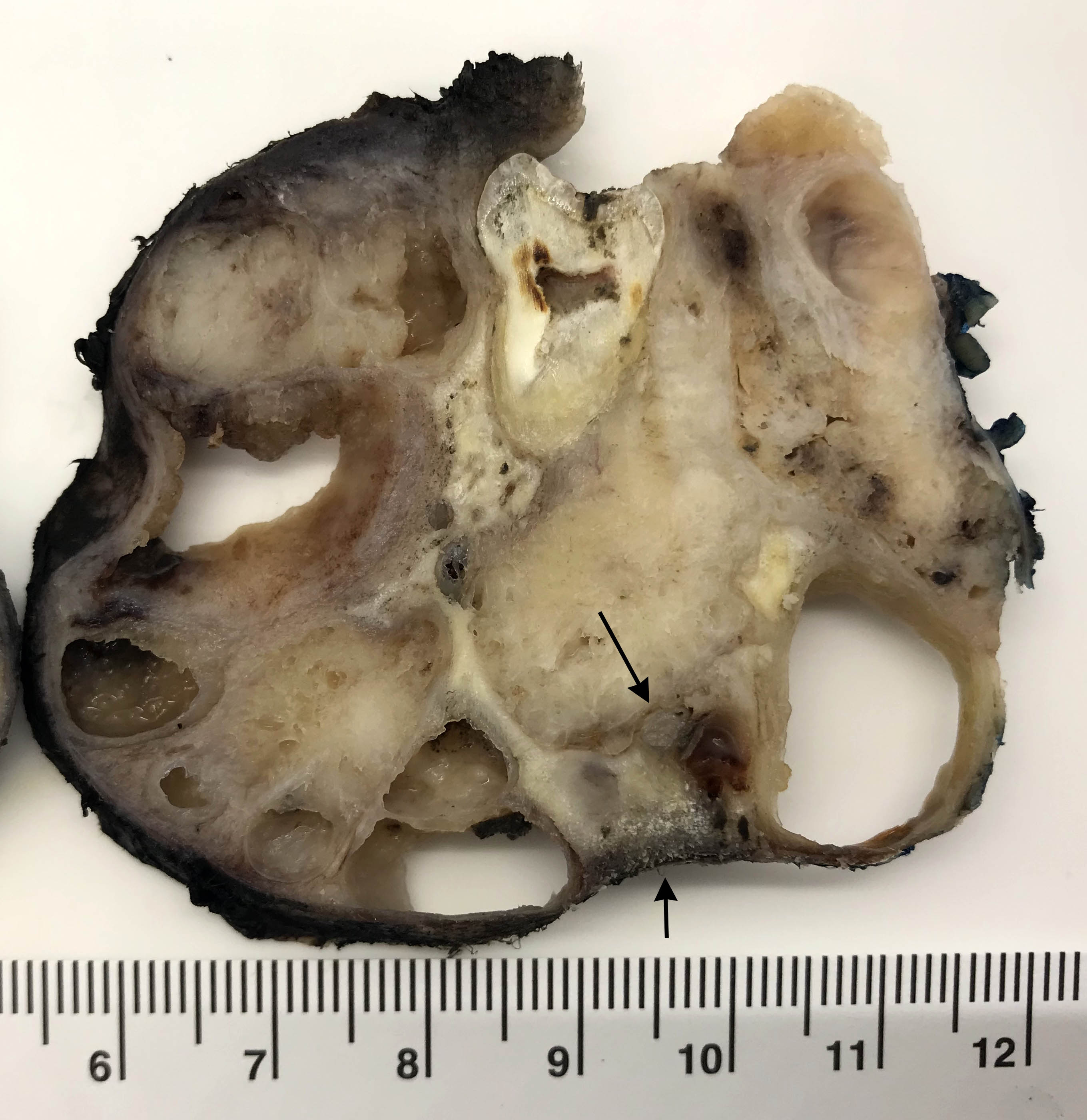Case 3: Mandibular ameloblastoma