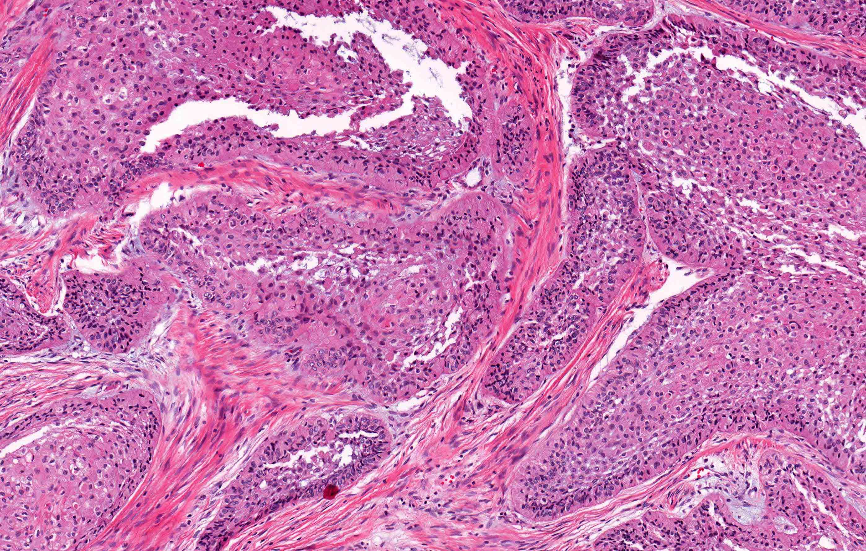 Case 1: granular cell change
