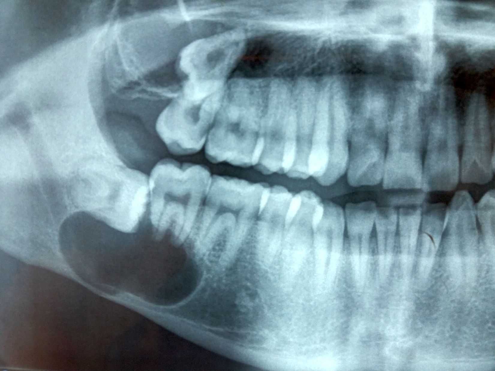 OOC right mandible