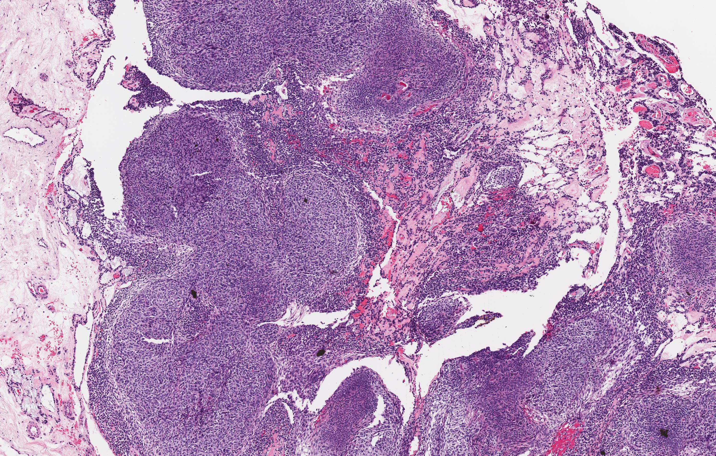 Adenomatoid odontogenic tumor