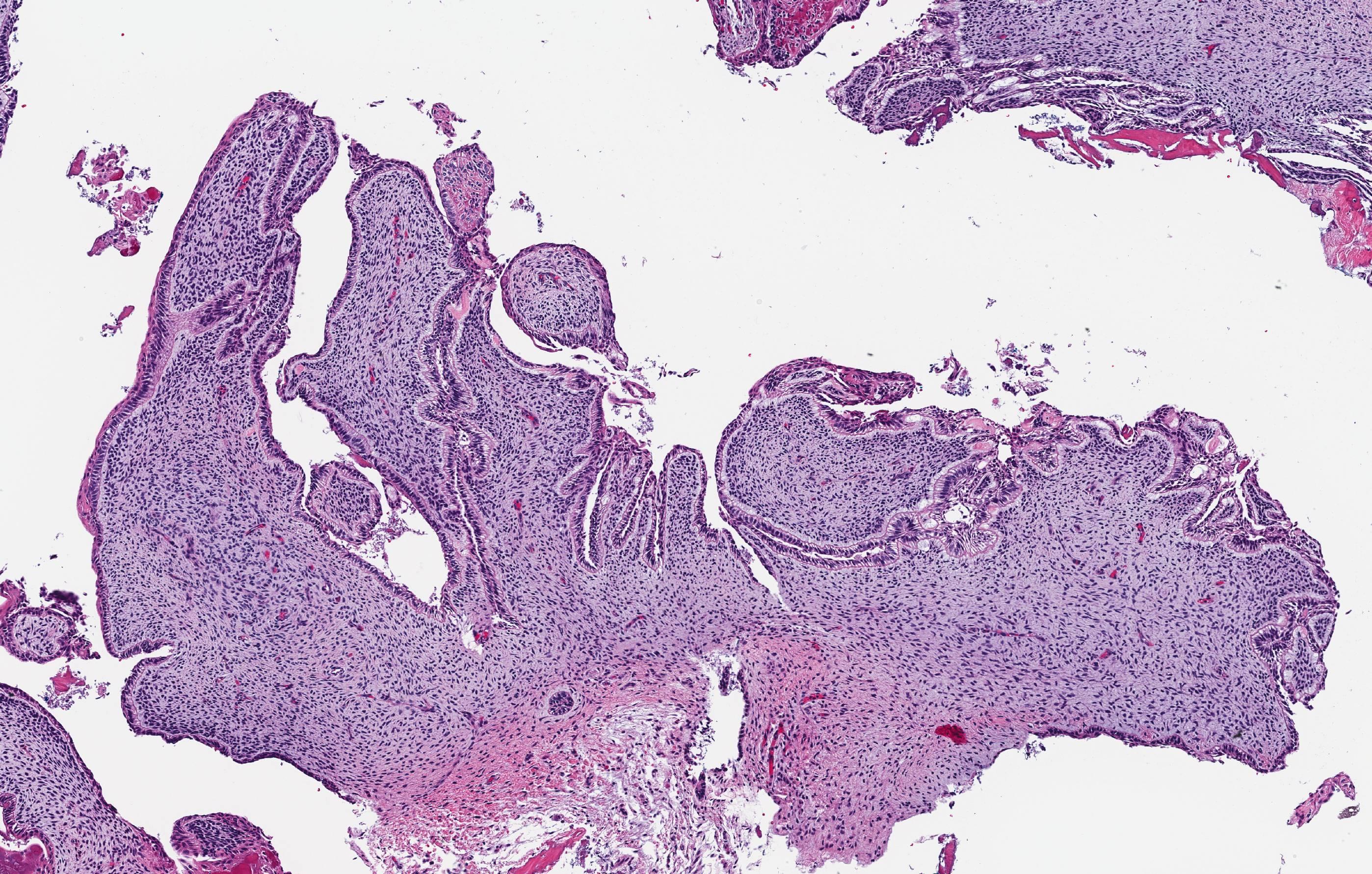 Primordial odontogenic tumor
