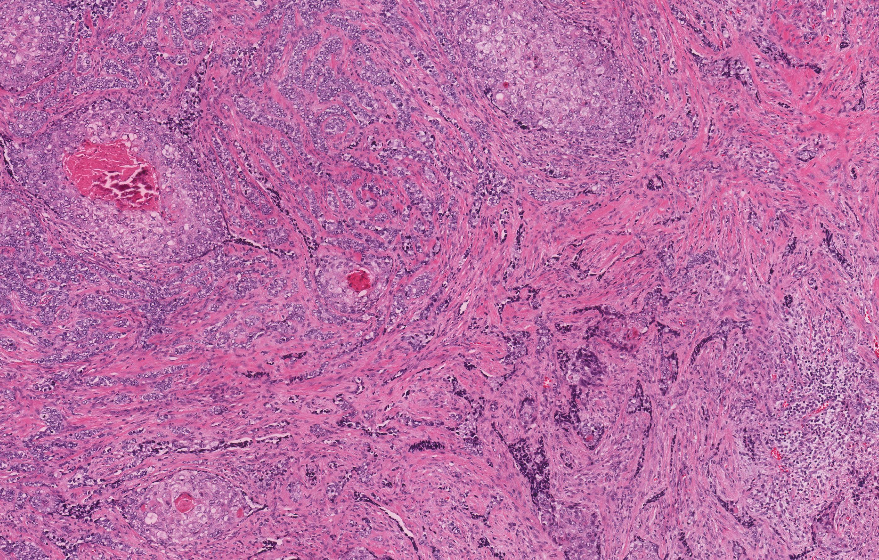 Primary intraosseous carcinoma, NOS