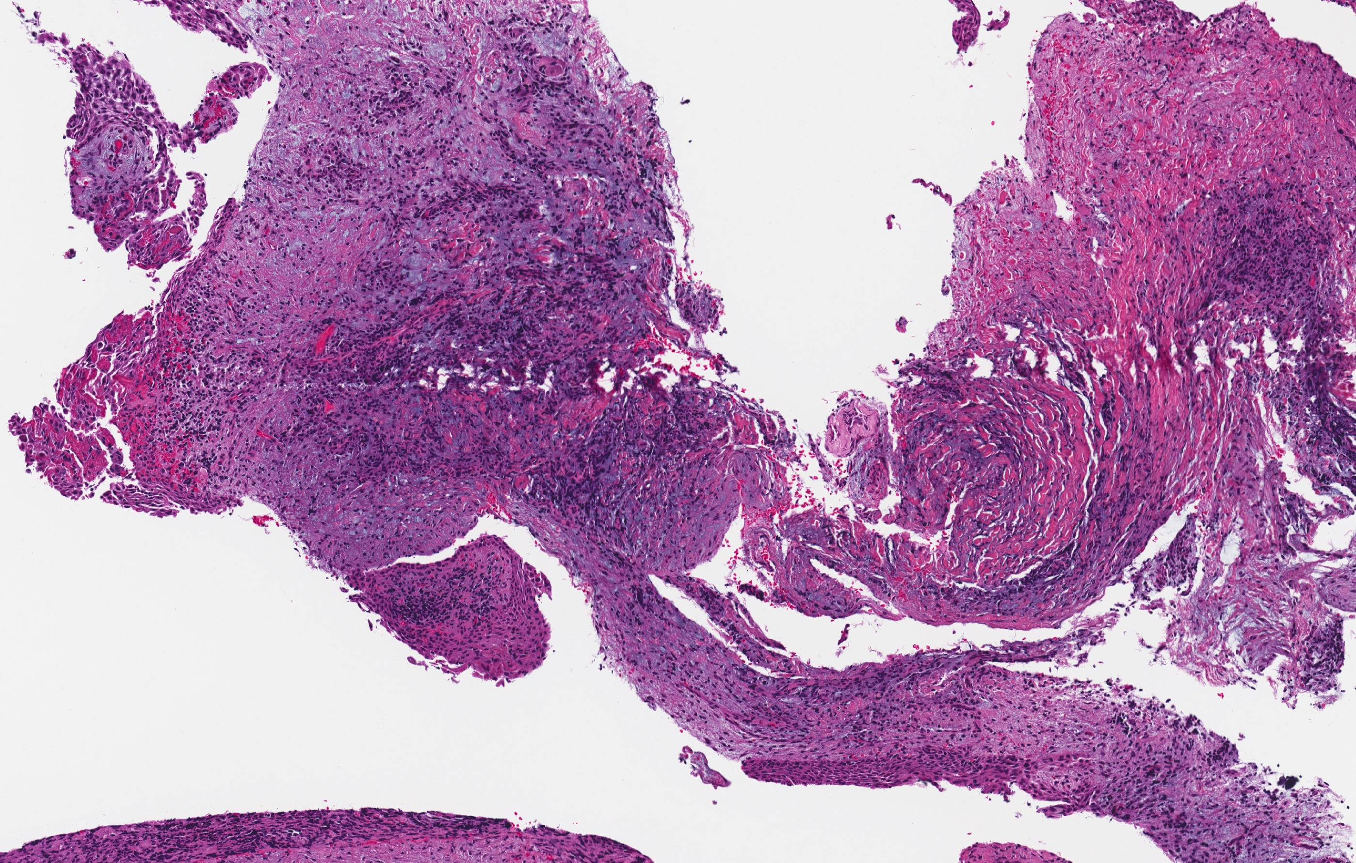 Inflammatory collateral cysts