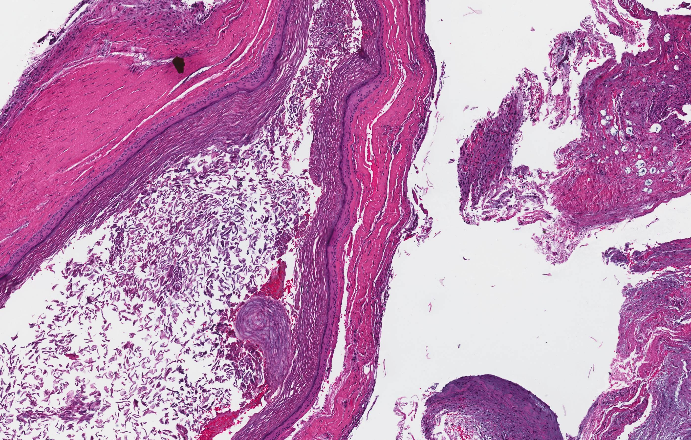 Orthokeratinized odontogenic cyst