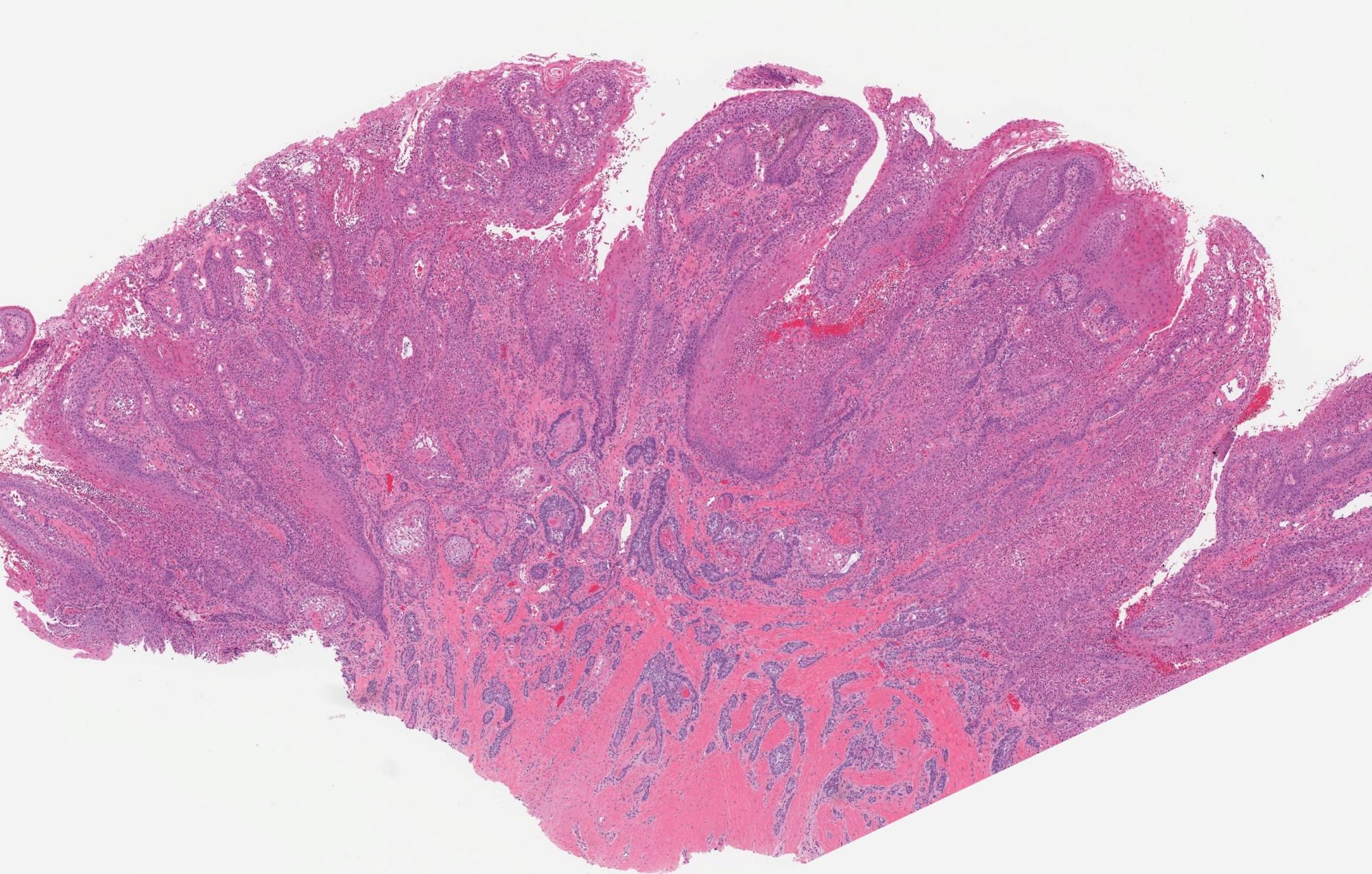 Ameloblastoma, extraosseous / peripheral type