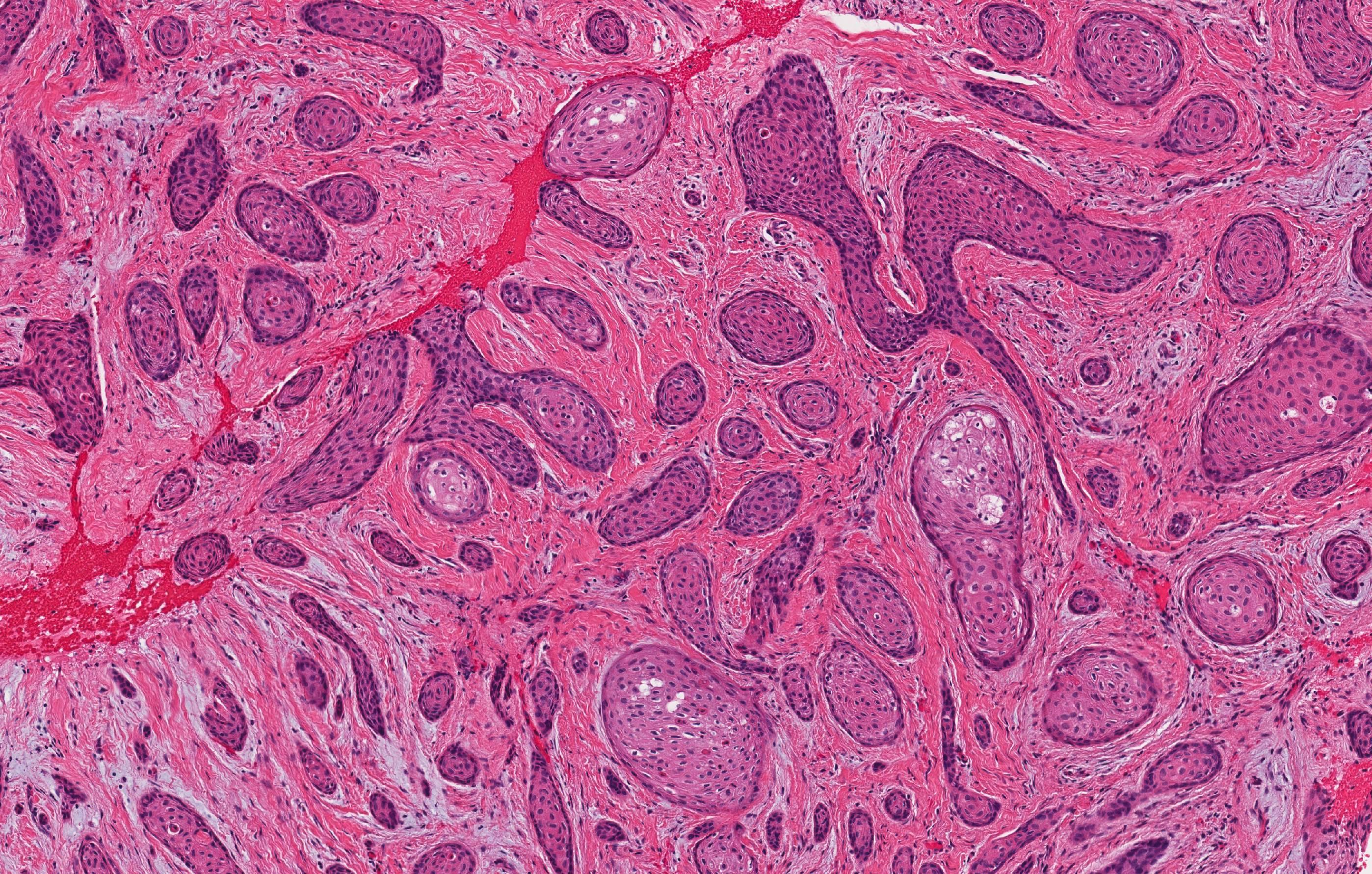 Squamous odontogenic tumor