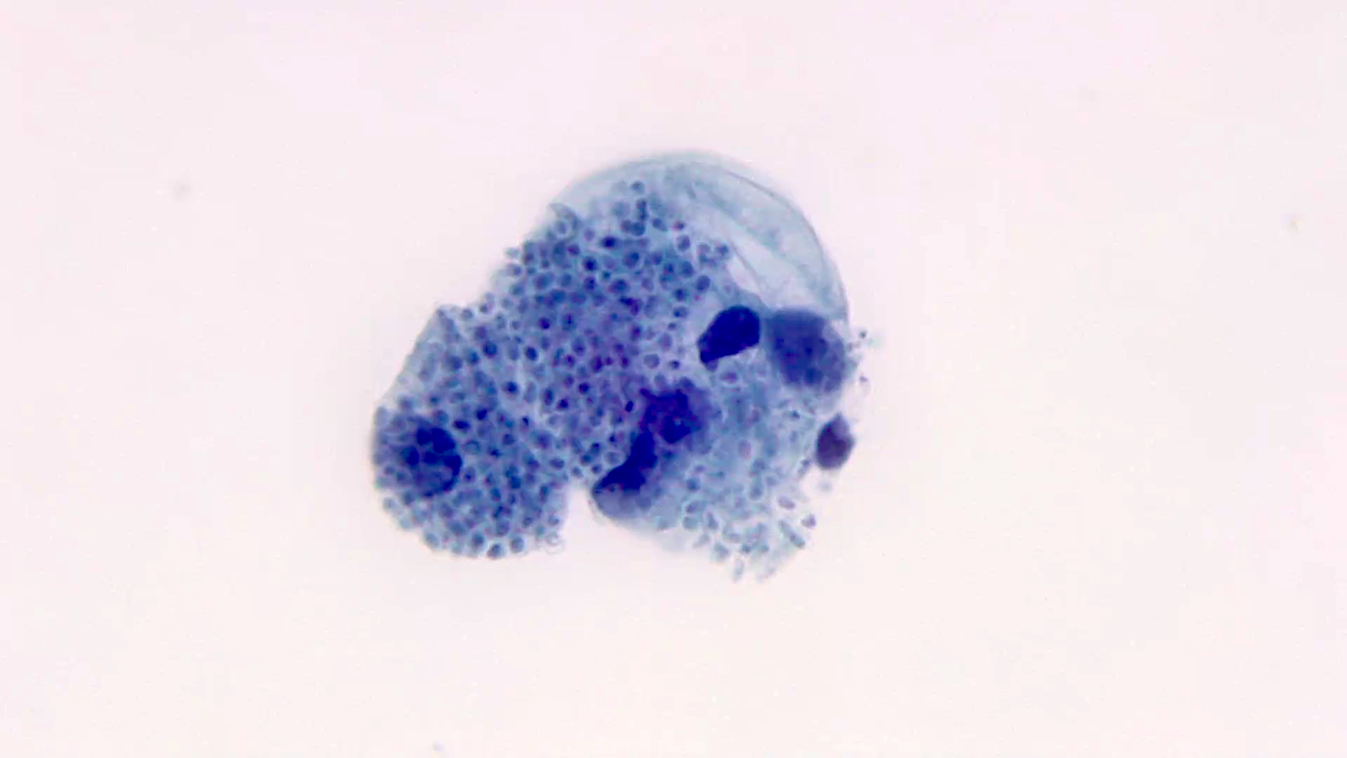 Uniform clustered yeasts within histiocytes