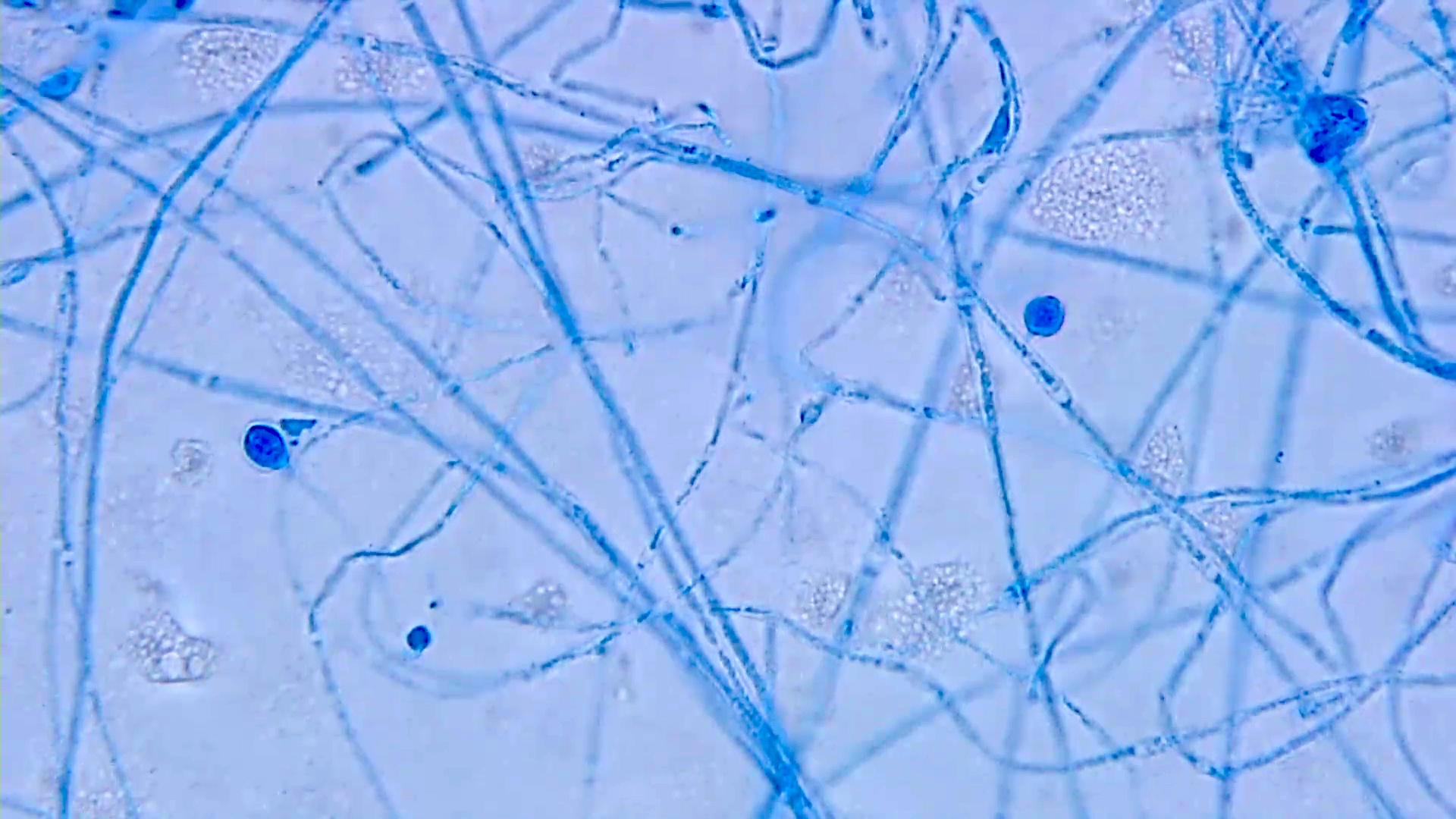 Lollipop aleurioconidia of Histoplasma