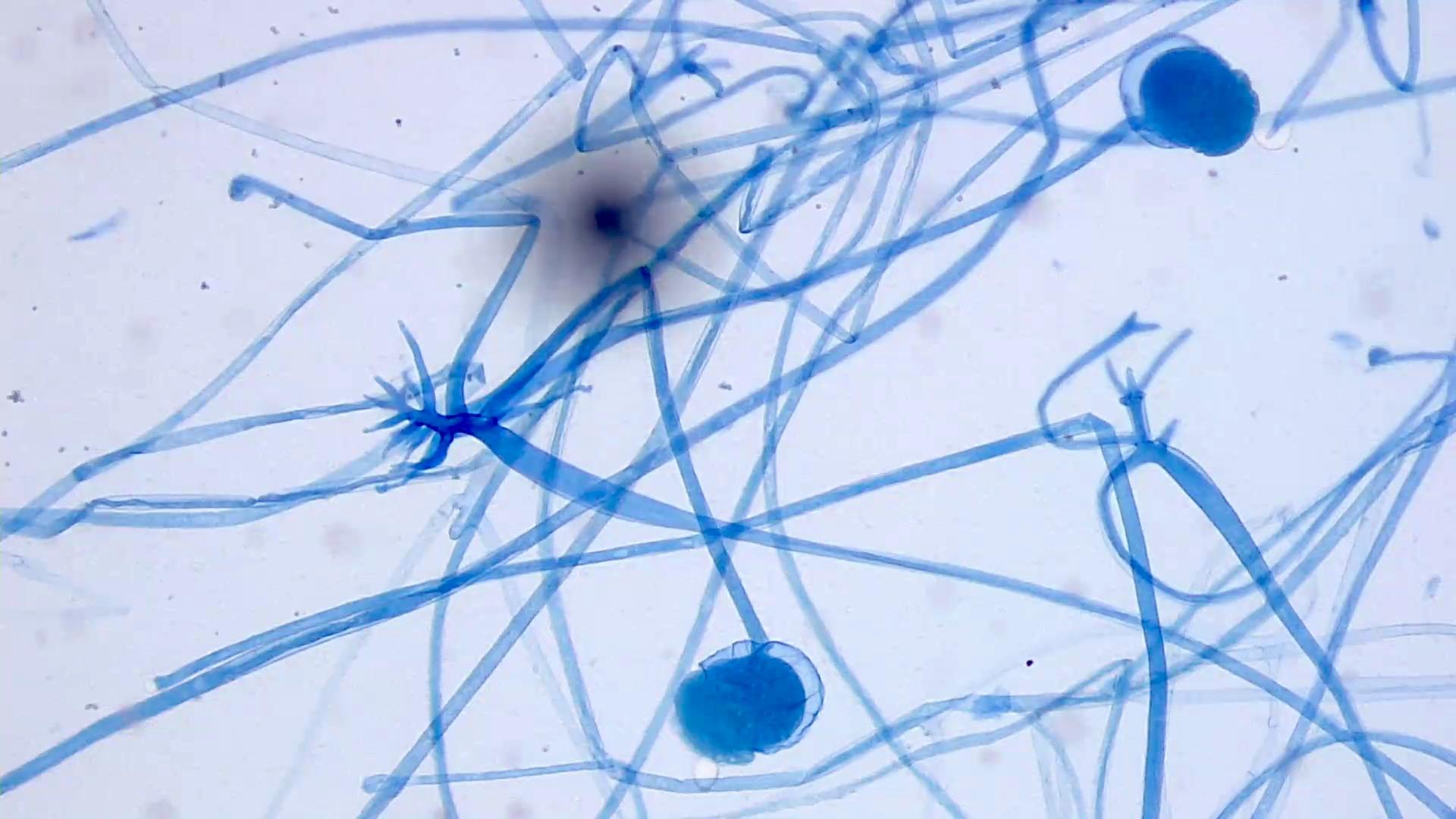 Mucor species fungal elements