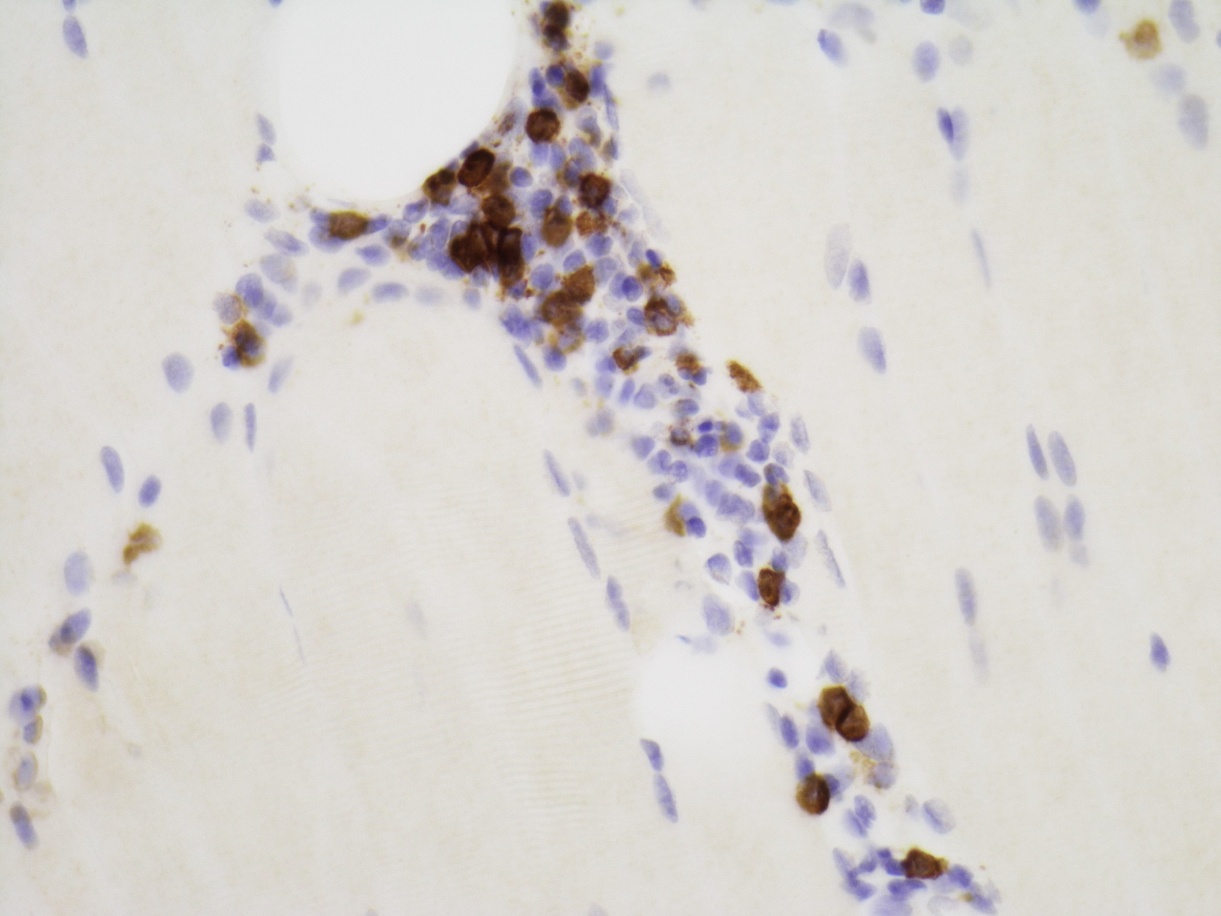 Predominantly CD8+ lymphocytic infiltrate