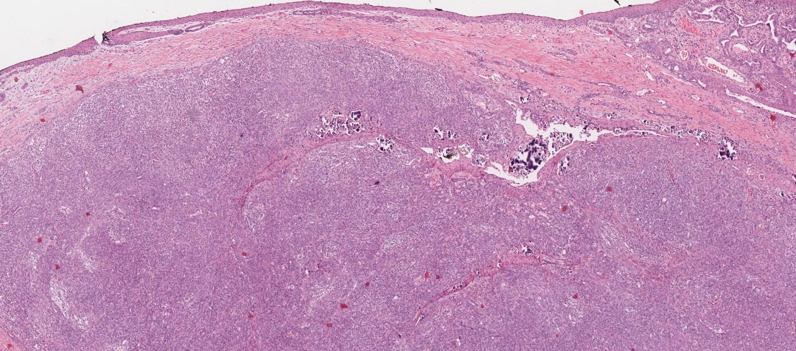 Nonkeratinizing squamous mucosa