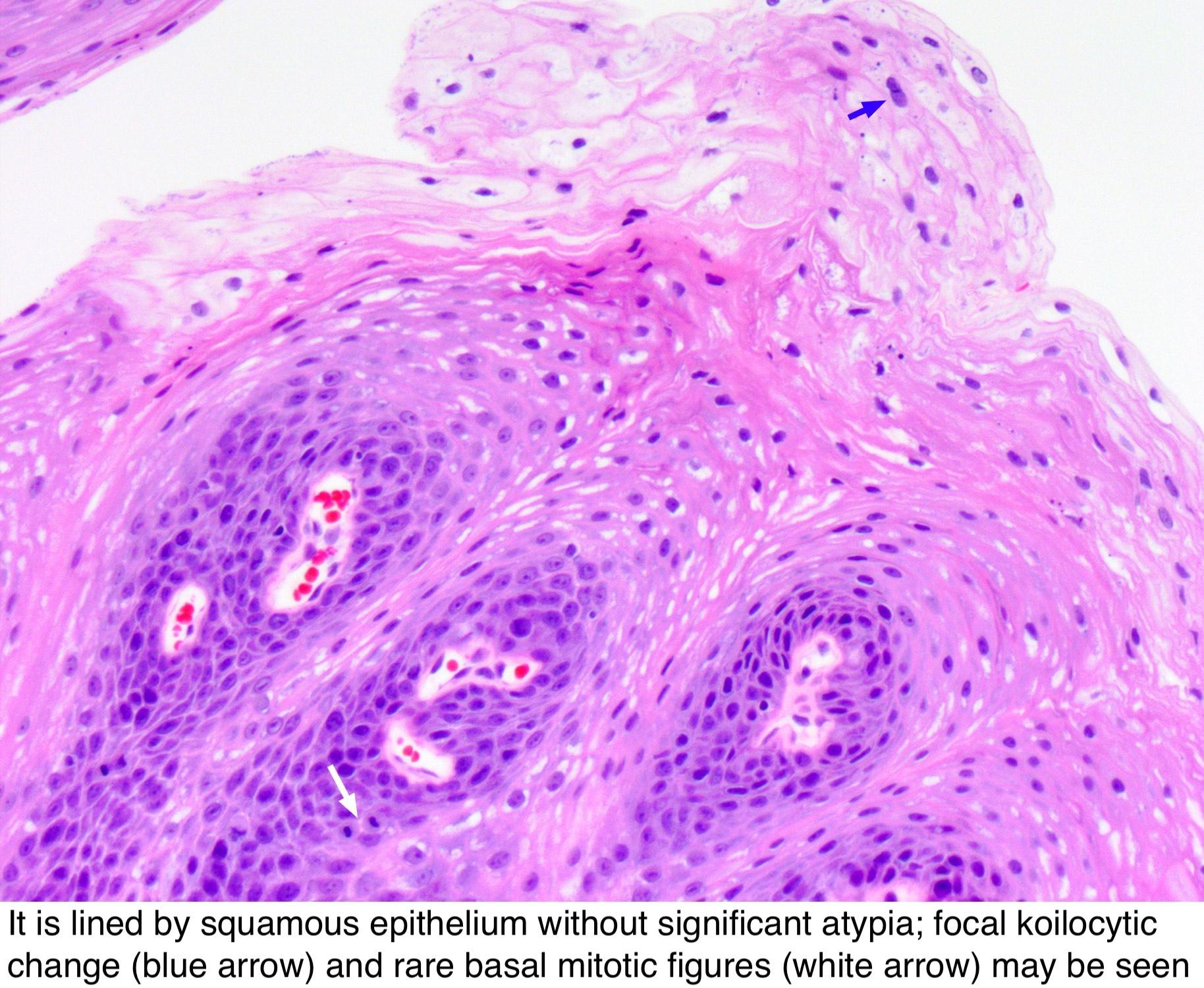 papilloma pathology outlines skin)