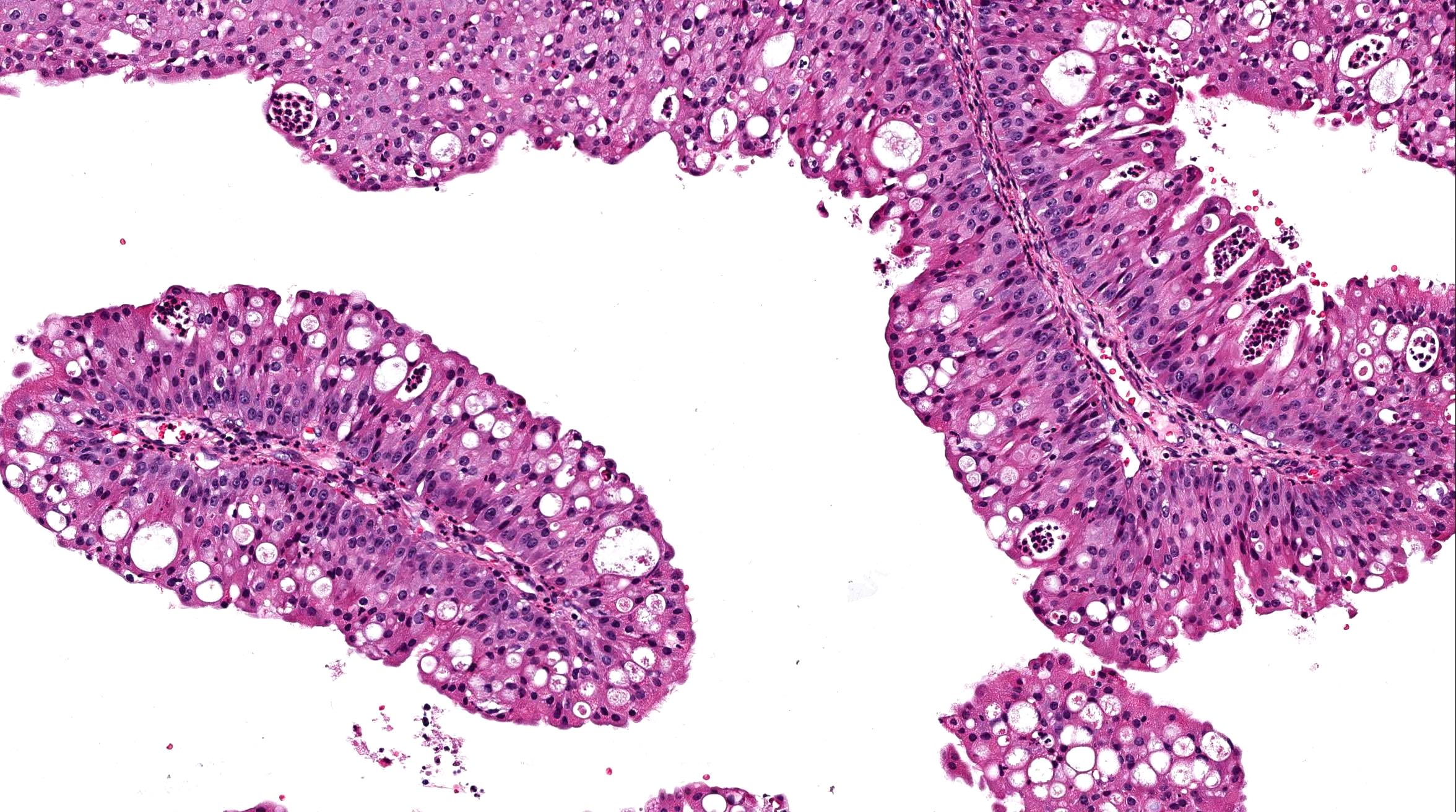 Inverted papilloma nasal pathology. RMR_Nr-2__Artpdf Nasal inverted papilloma histology