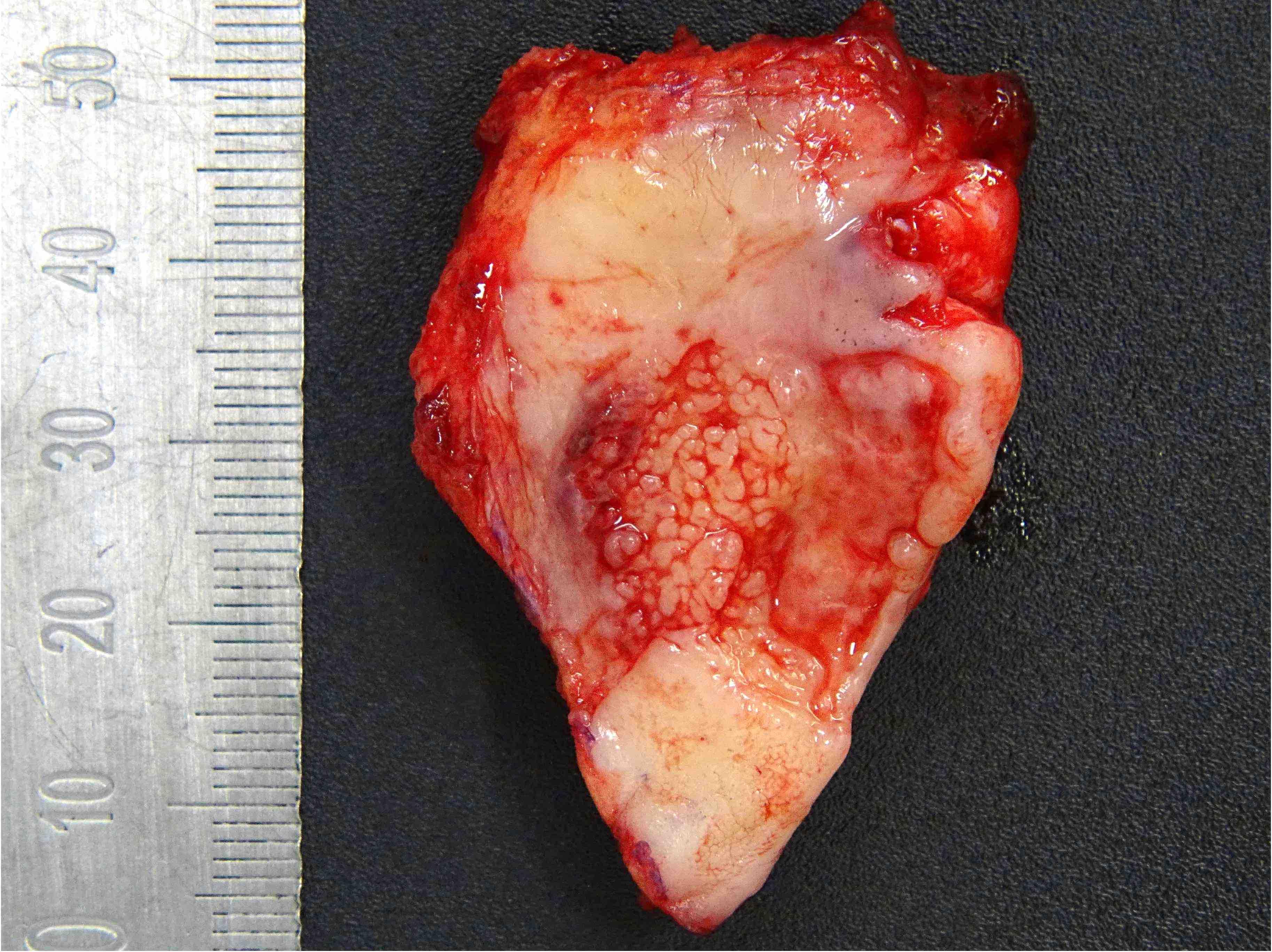 Verrucous mucosal lesion