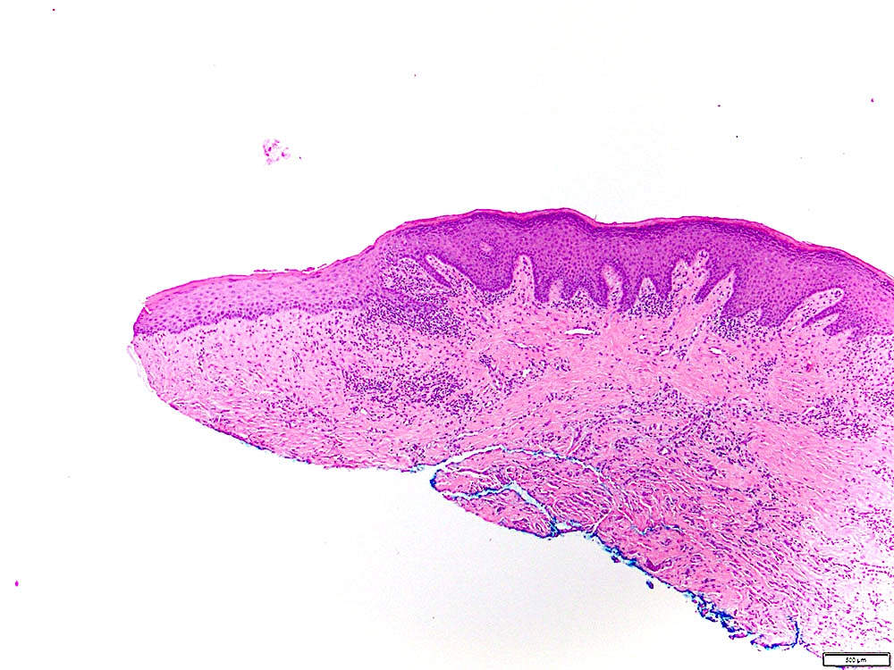 Sharply demarcated hyperkeratosis