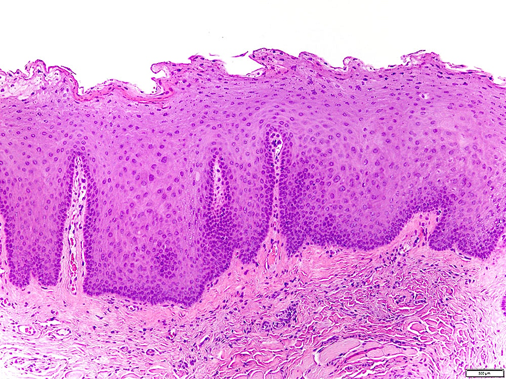Parakeratosis and epithelial hyperplasia