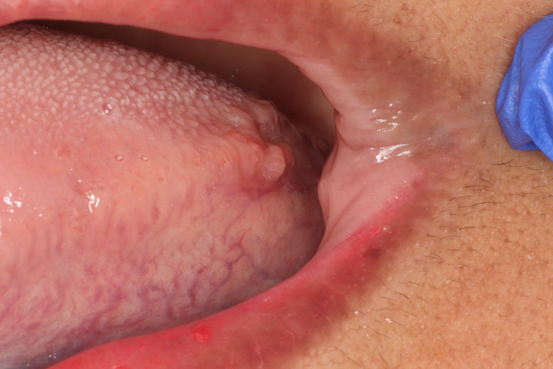 Posterior lateral tongue