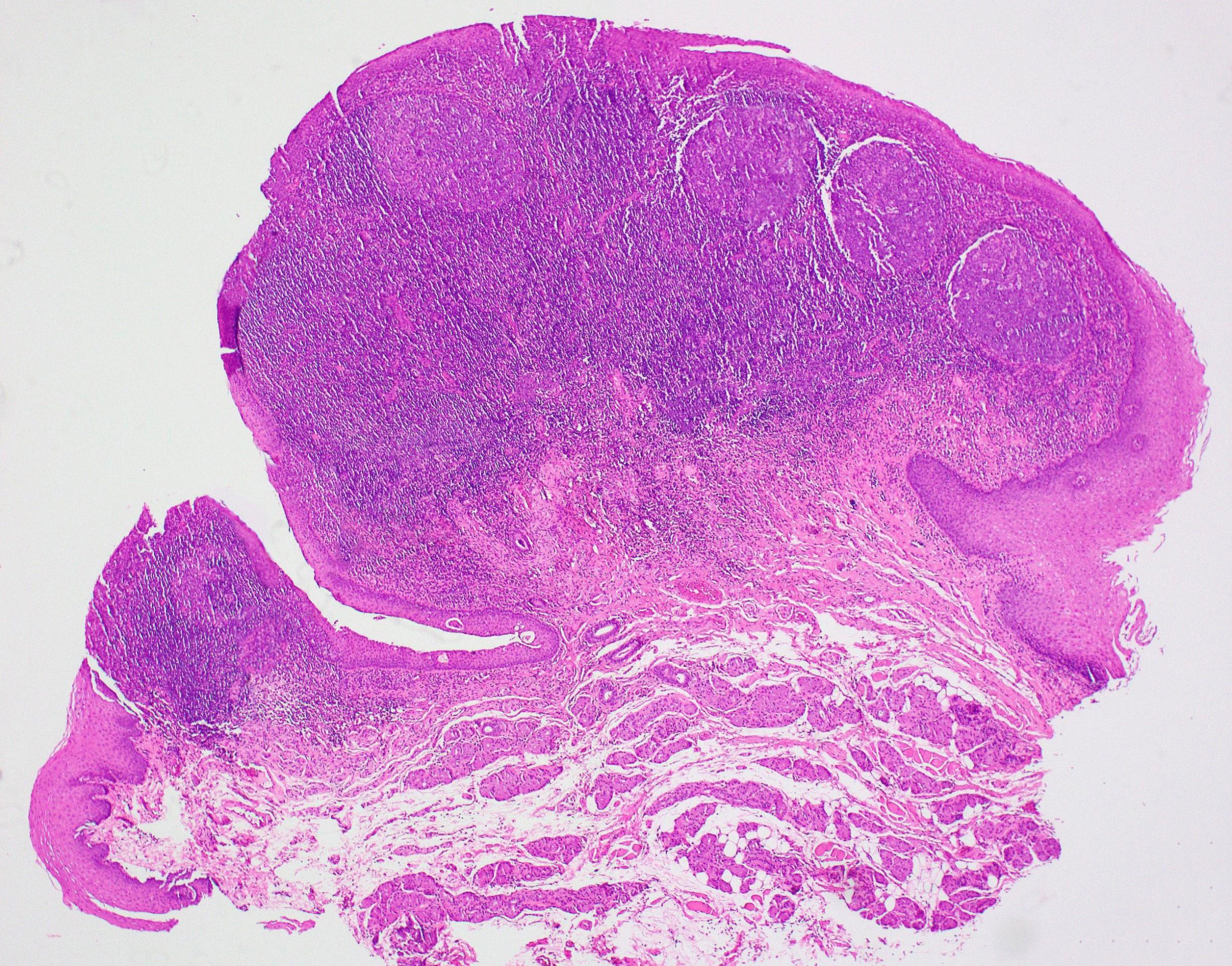Germinal center formation