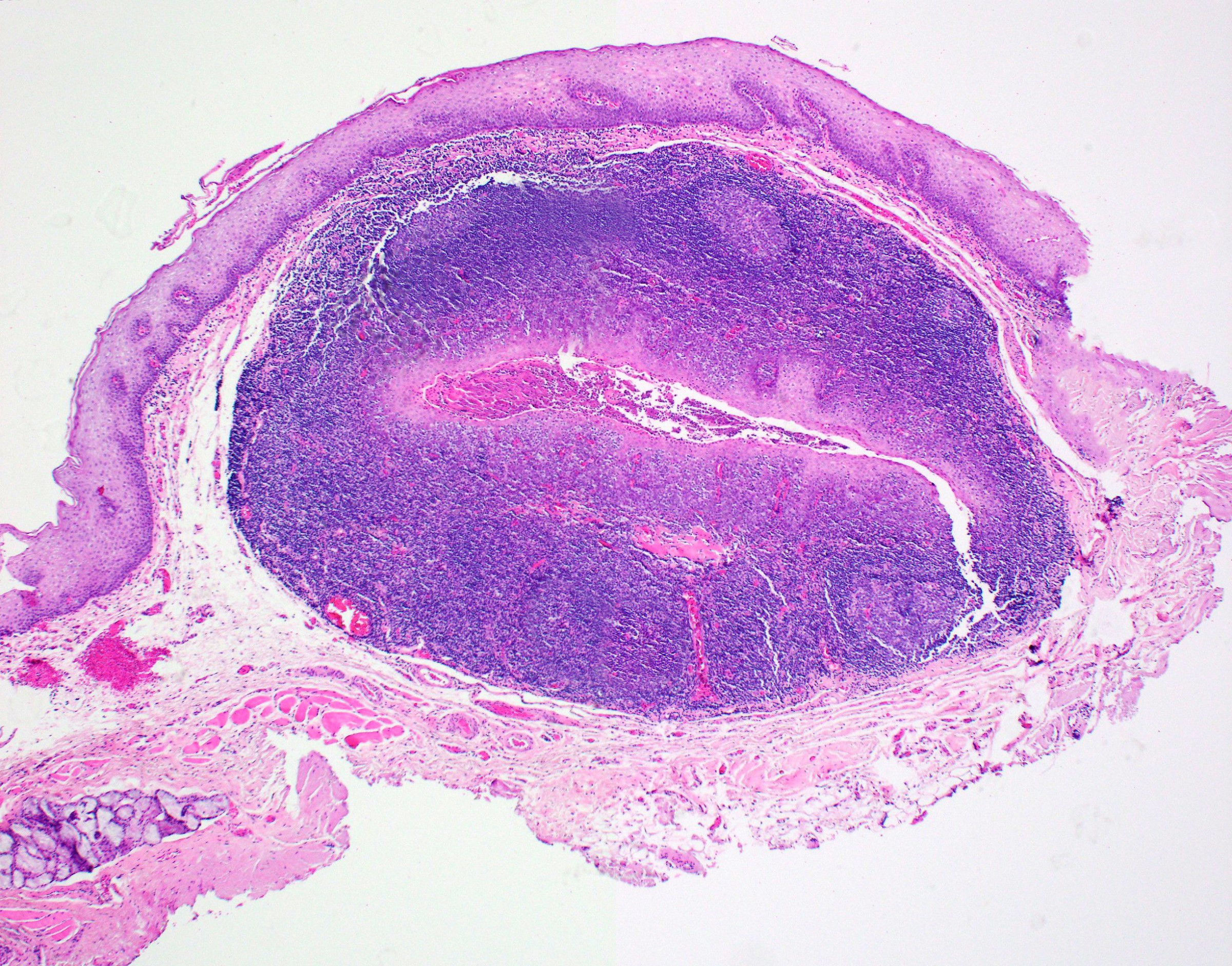 Epithelial crypt formation