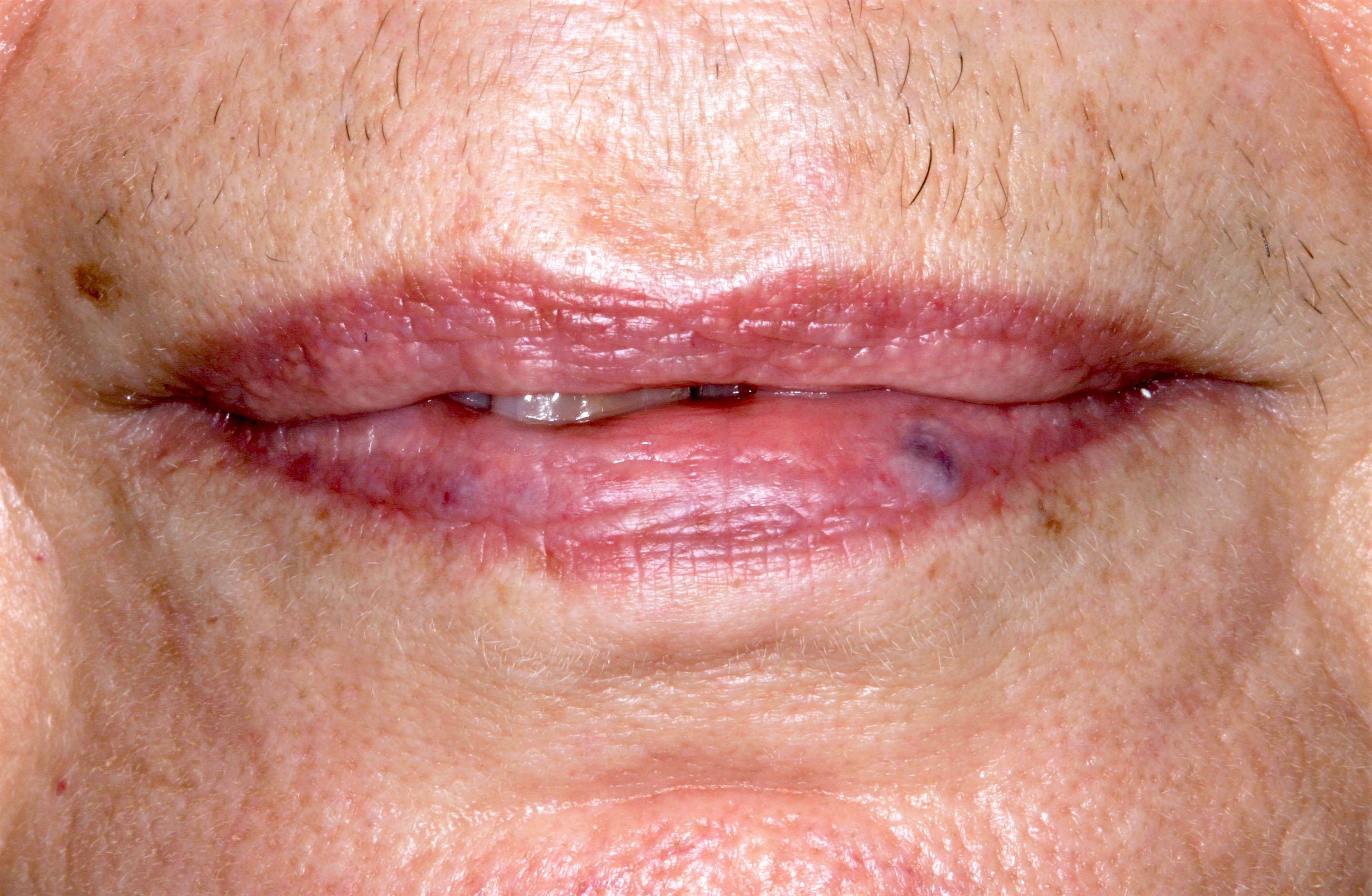 Varicosity on lower lip