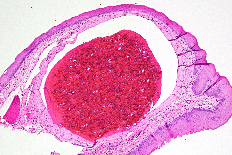 Oral varicosity