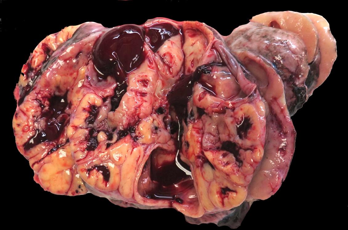 Solid, cystic and hemorrhagic mass