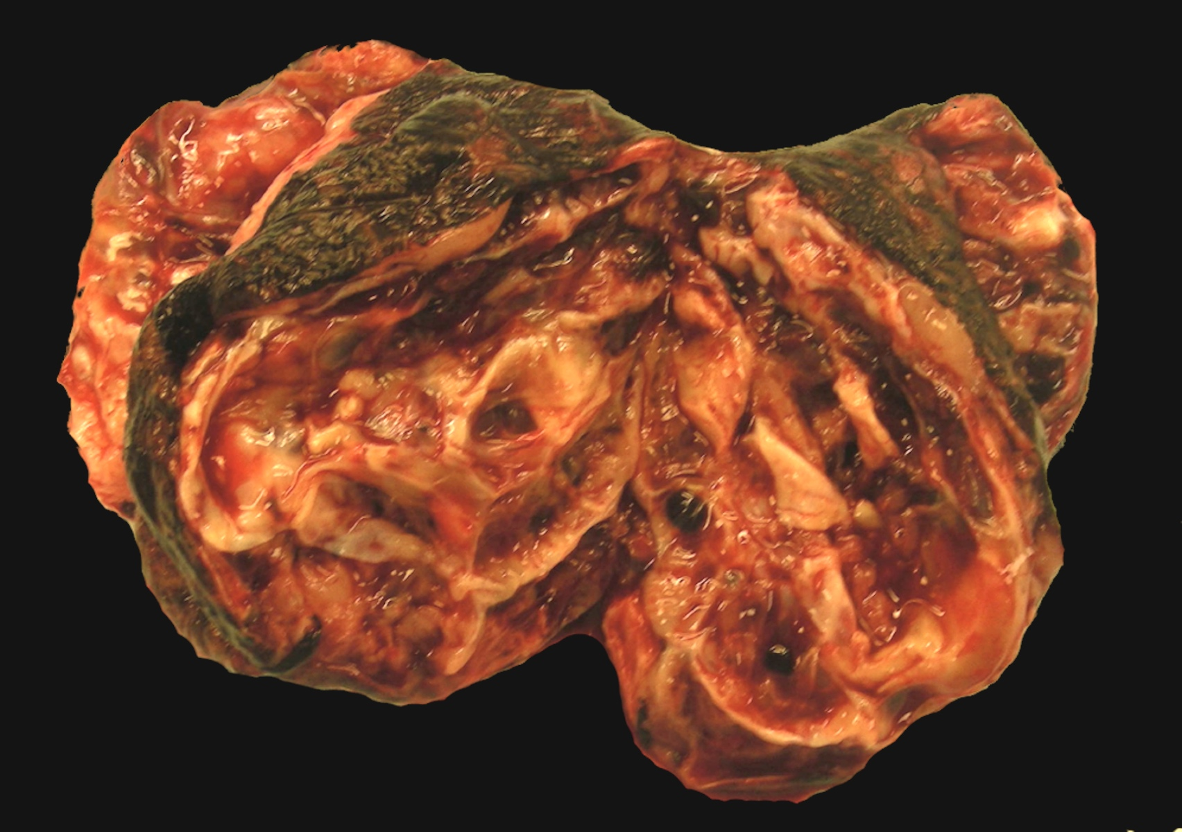 Solid and cystic mass