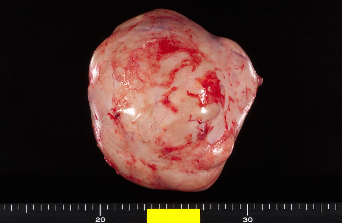Bilateral endometrioid cancer, left: 730g, 14.5x12.6cm