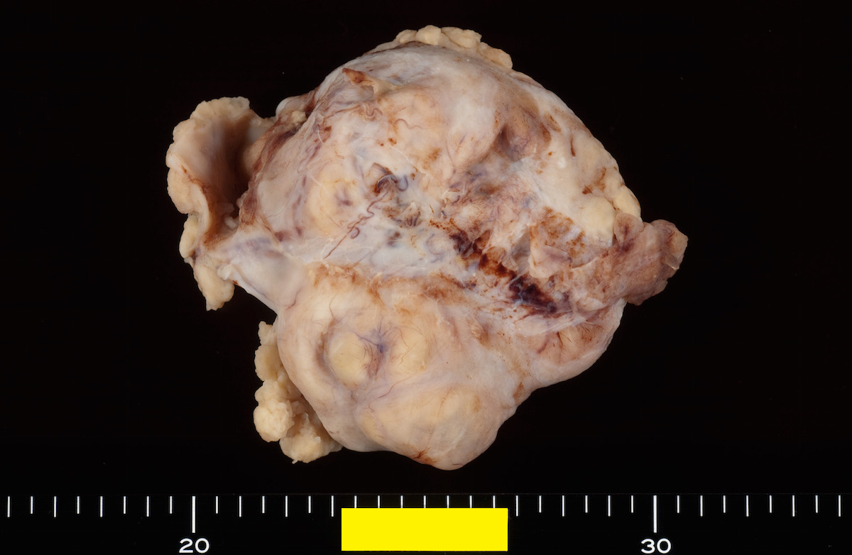 Cyst wall outer surface