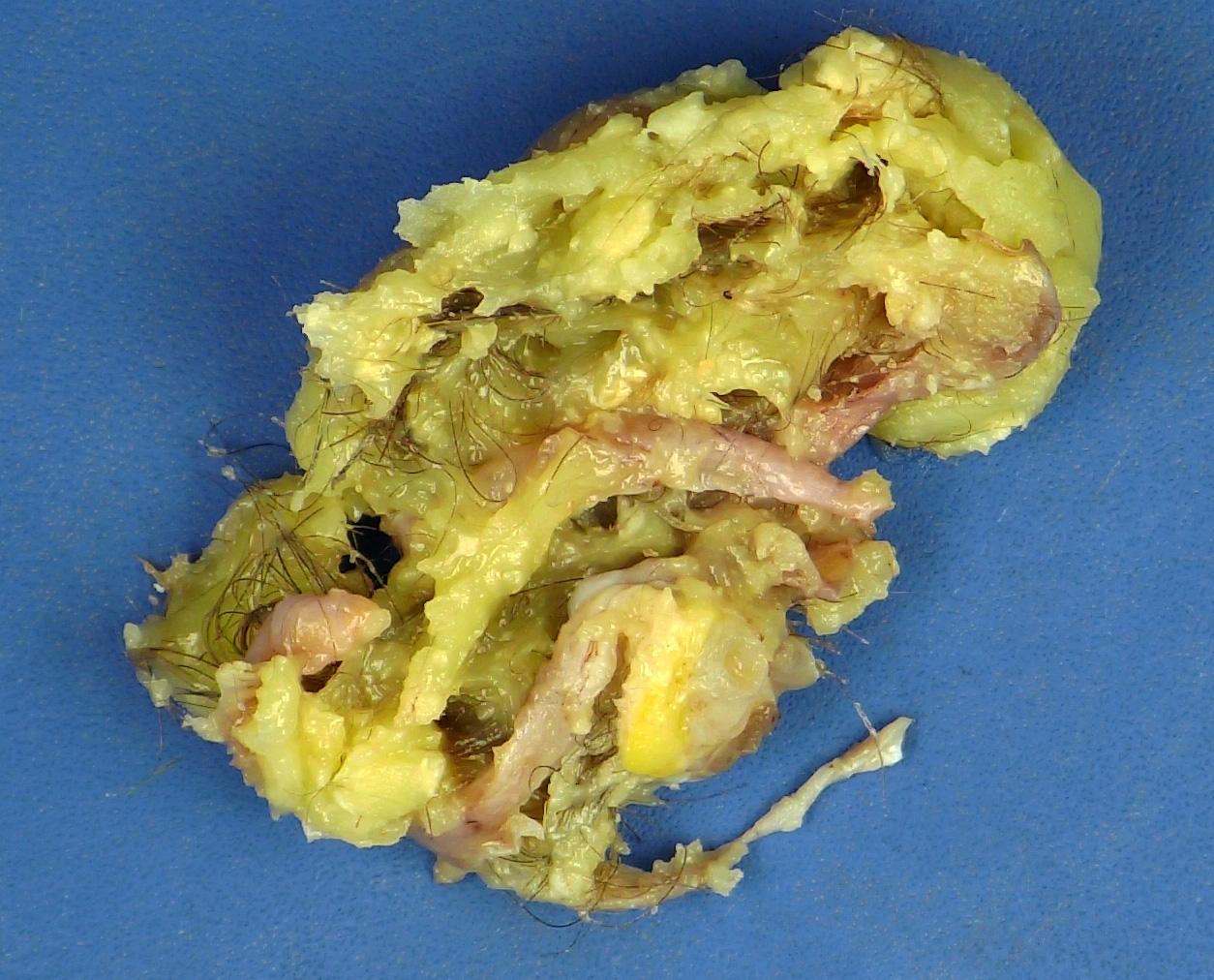 Ovarian mature teratoma