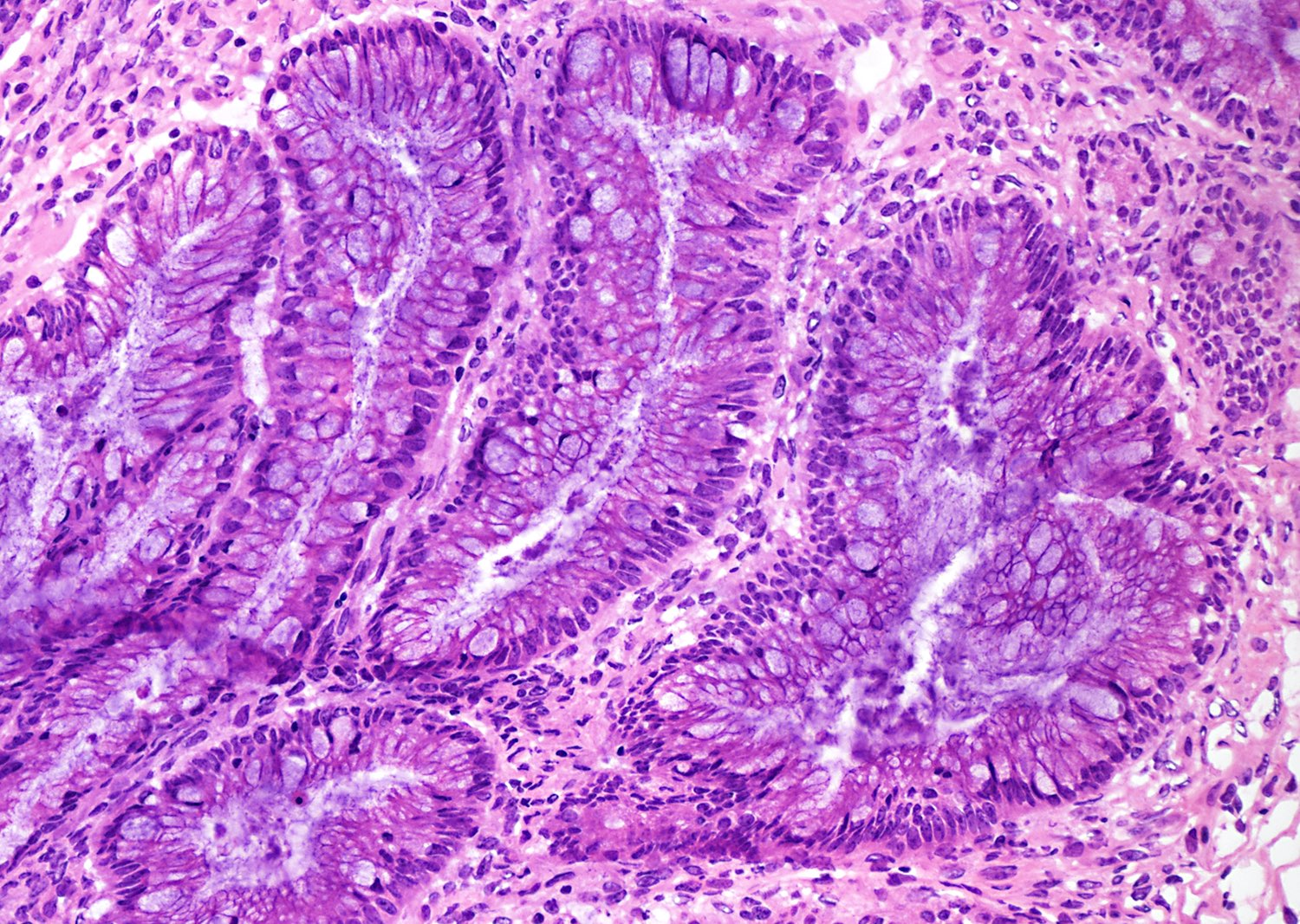 Intestinal type mutinous epithelium