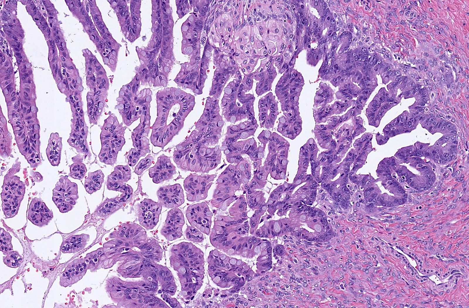 Mucinous intestinal type epithelium