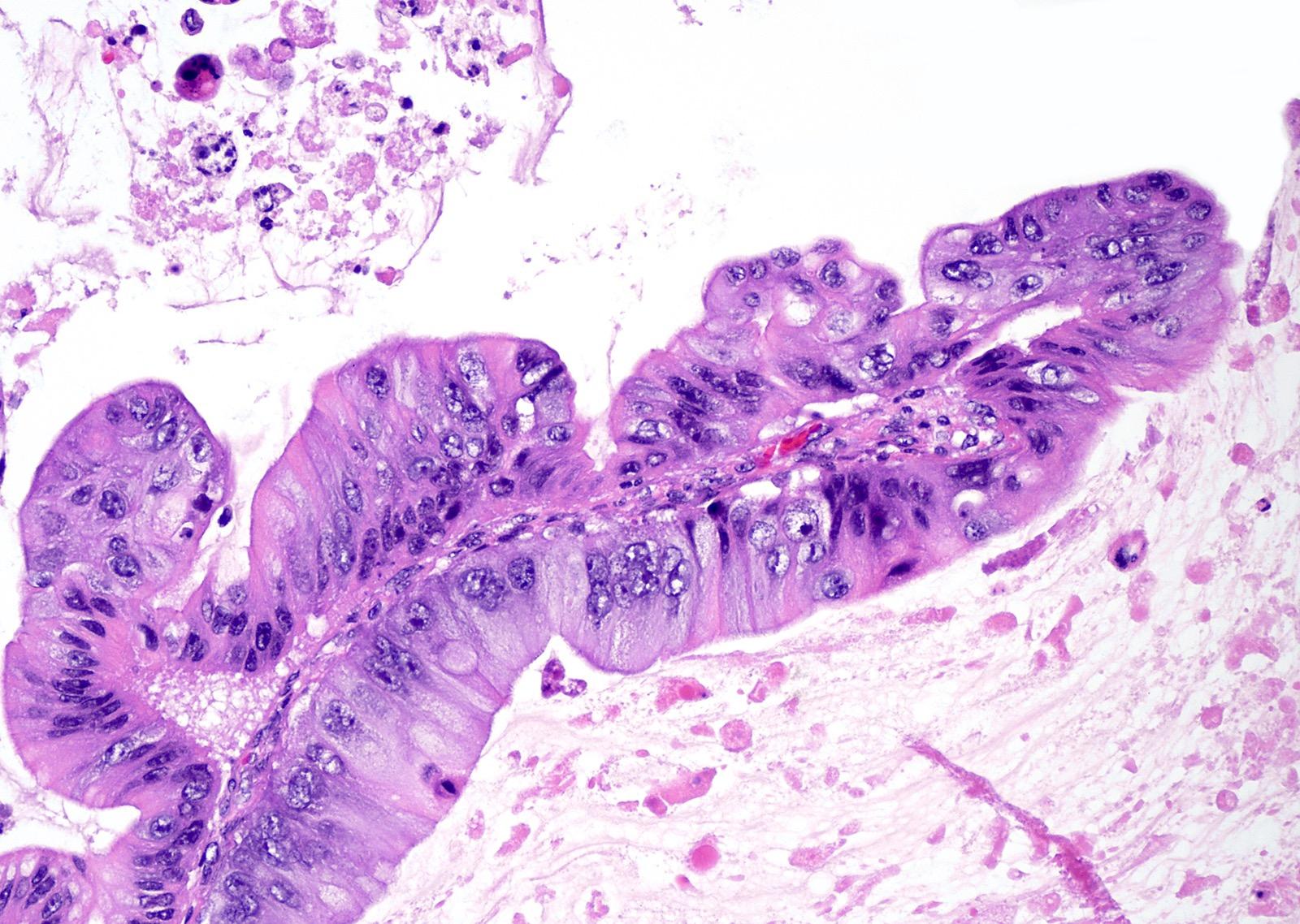 Intraepithelial carcinoma