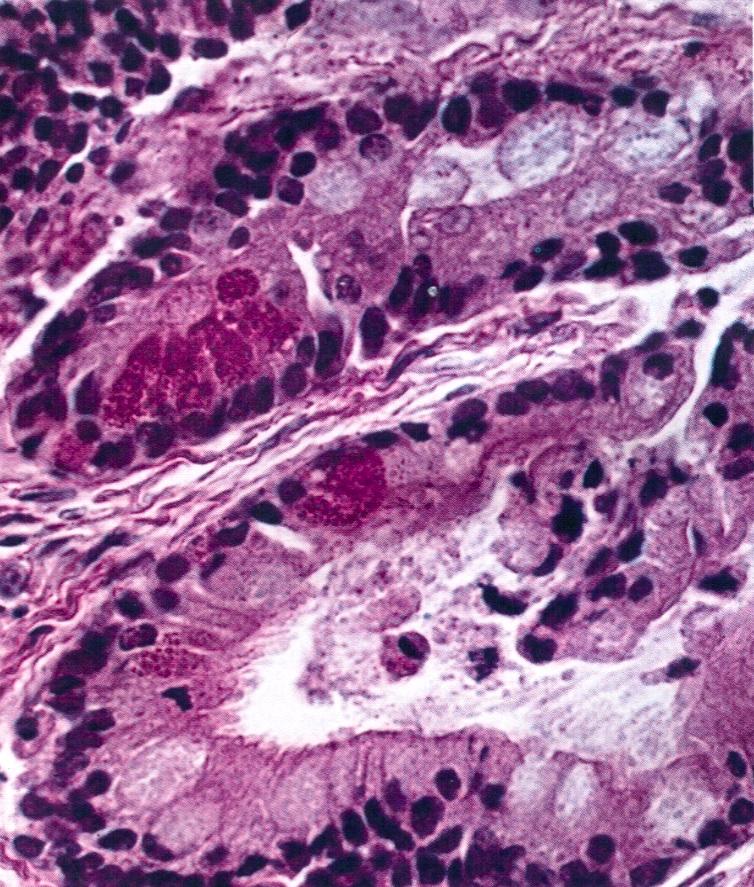 Mucinous cystic tumor