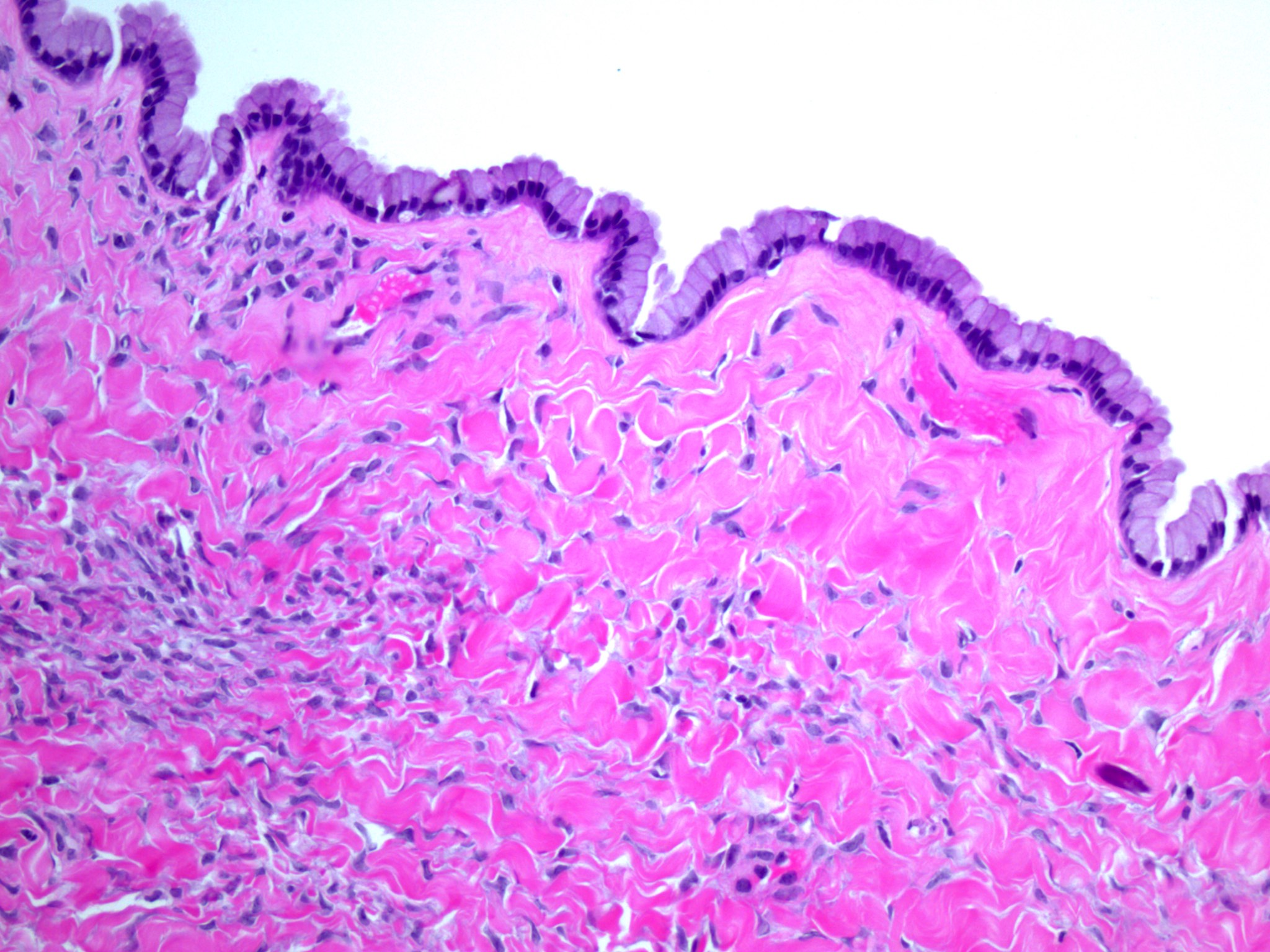 Bland mucinous epithelium