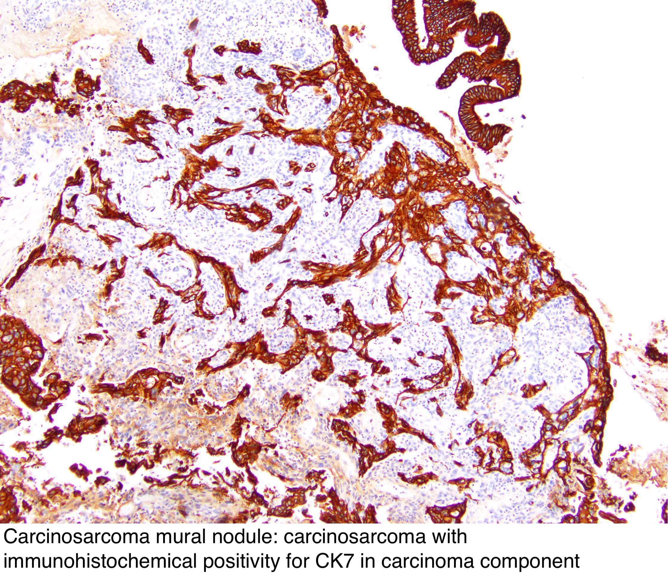 Pathology Outlines Mural Nodules In Mucinous Cystic Neoplasms