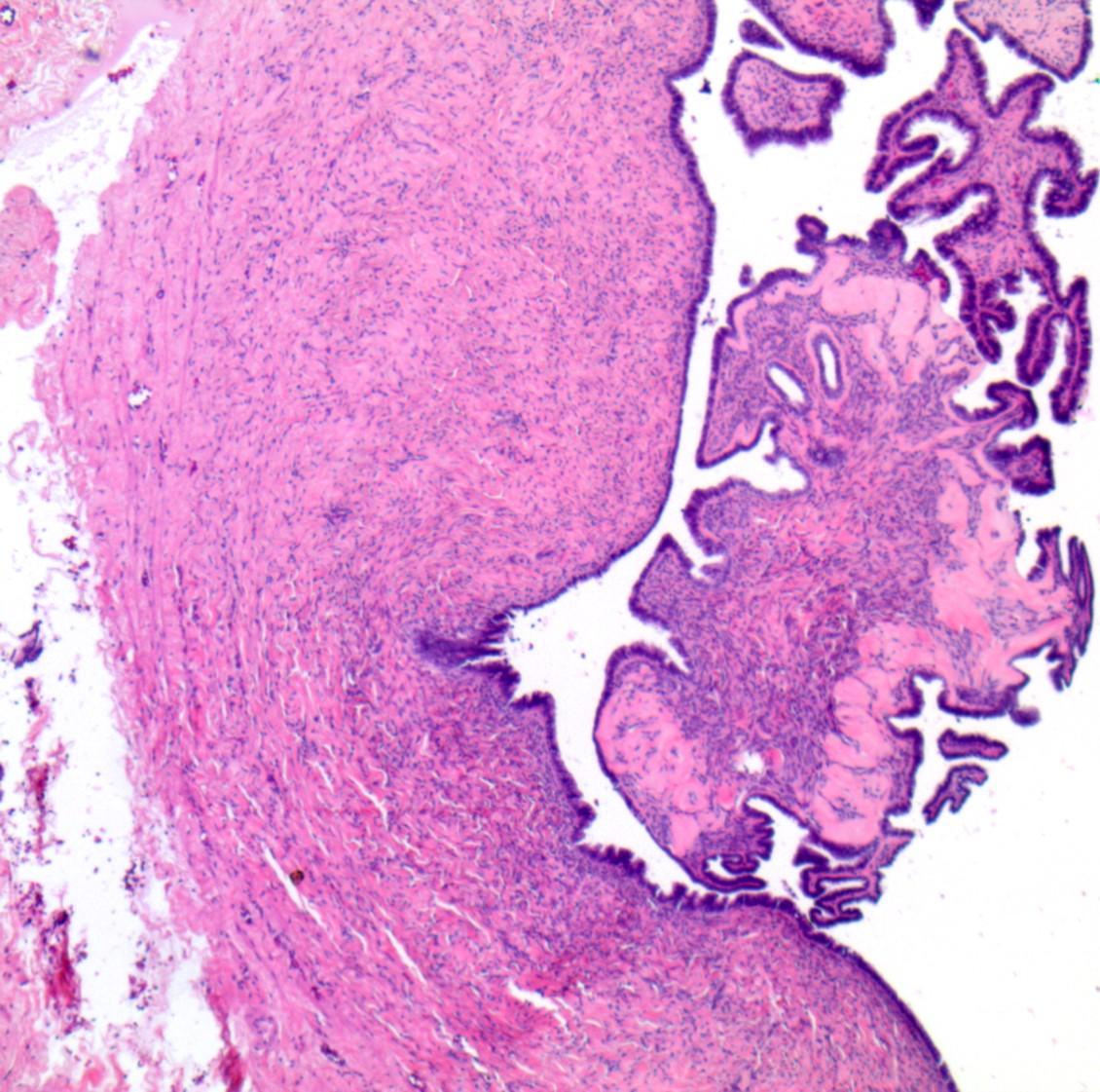 Serous cystadenoma with focal epithelial proliferation