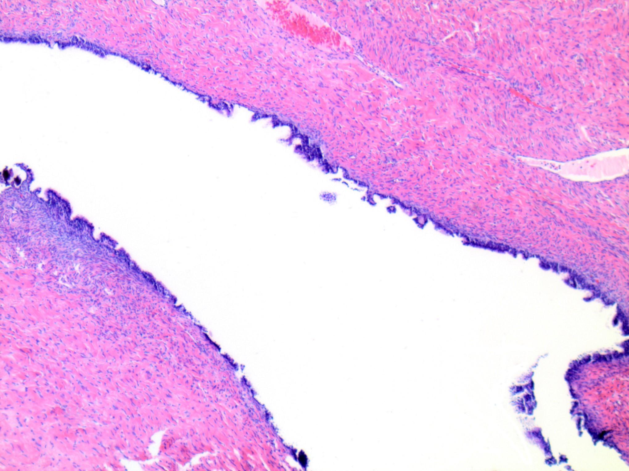 Serous cystadenofibroma