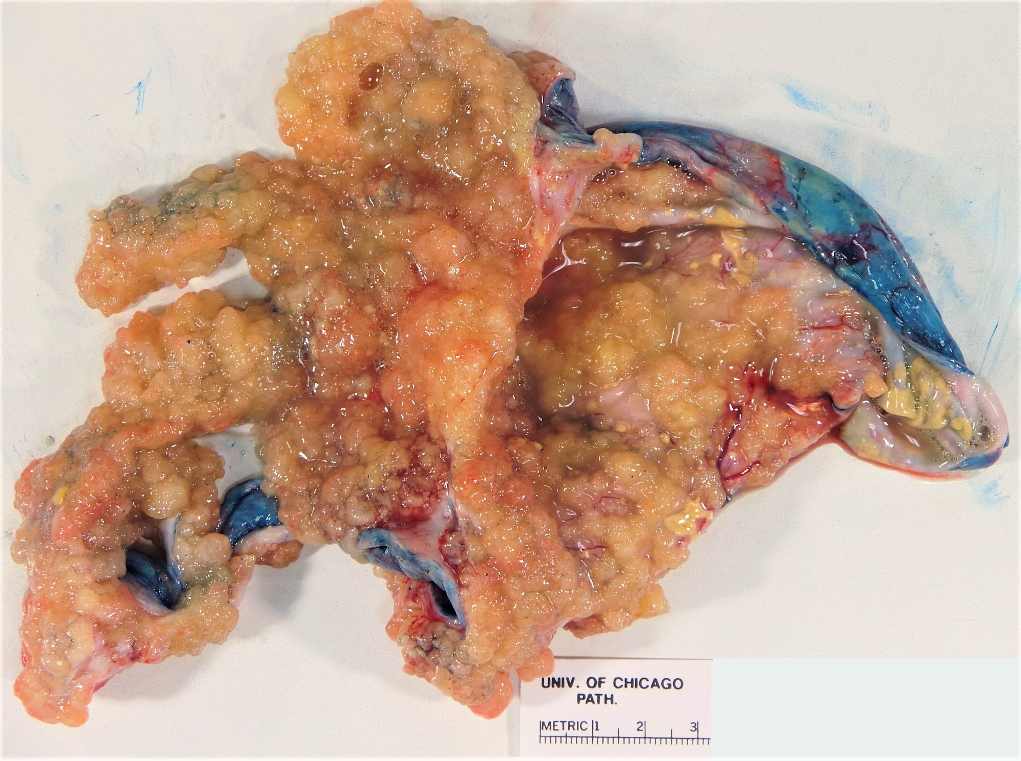 Excrescences inked cyst